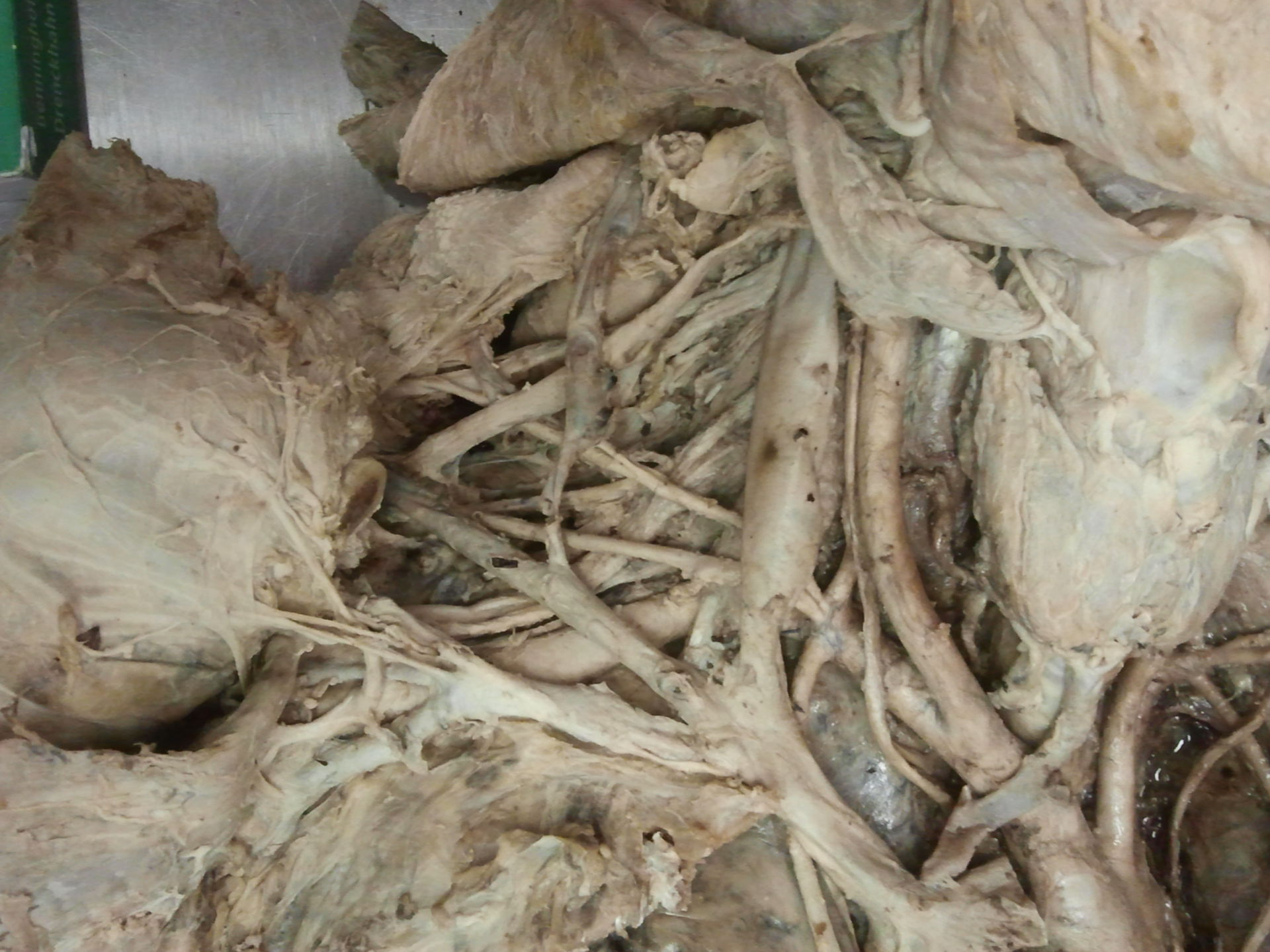 Truncus brachiocephalicus (5)