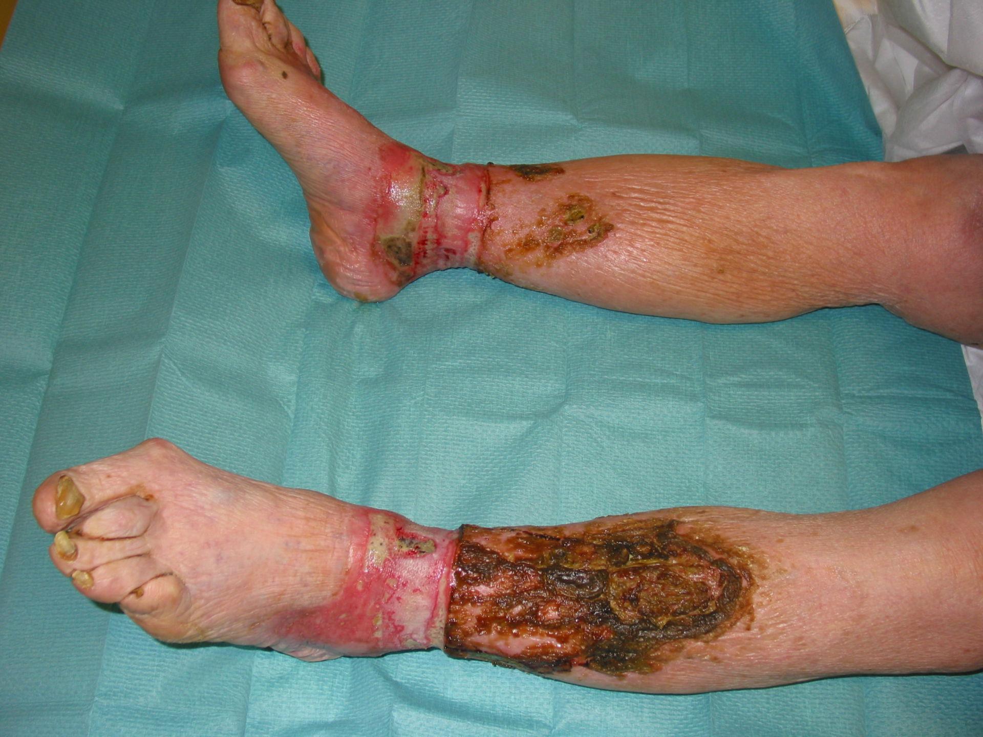 Ulcera venosa