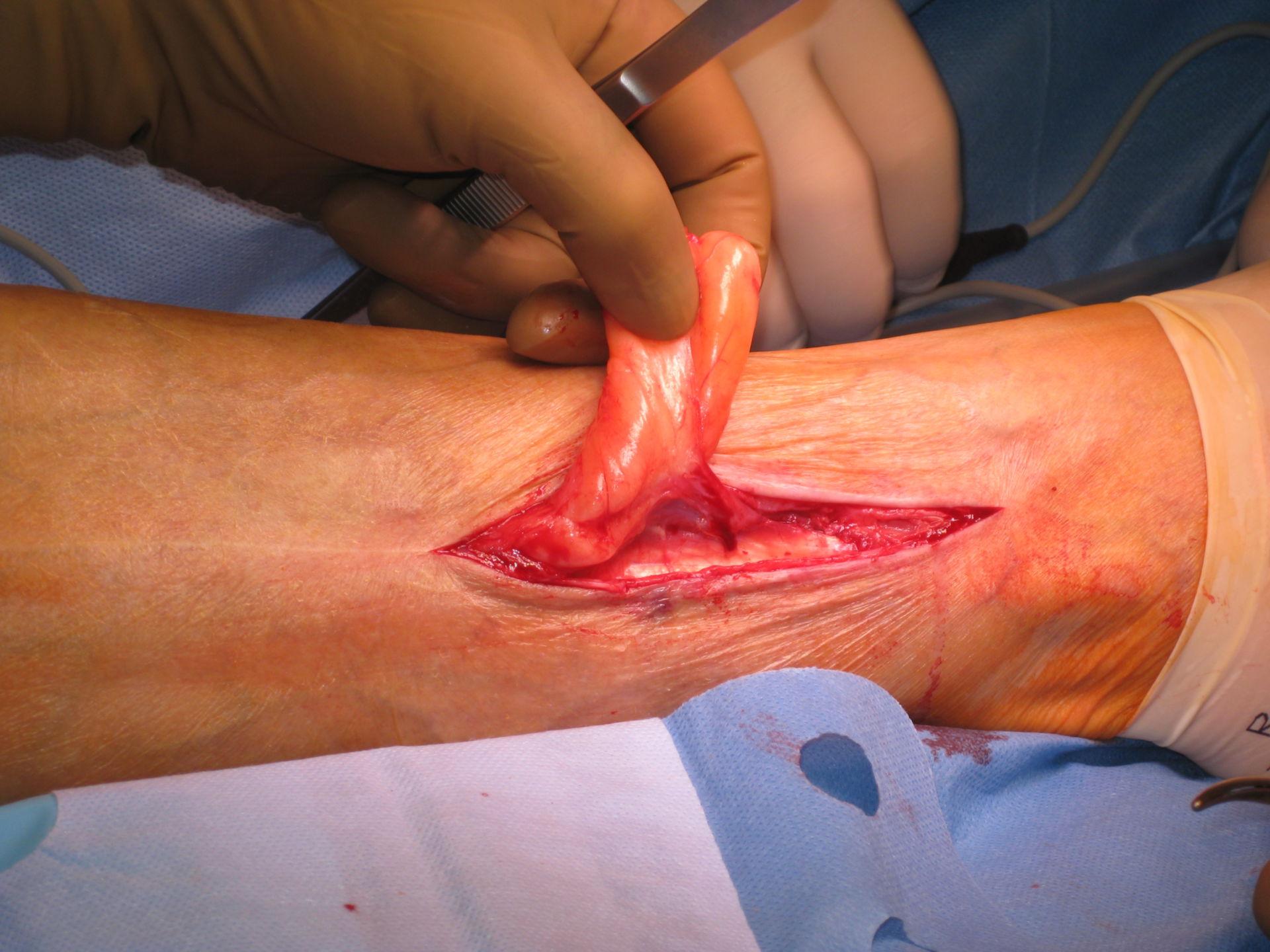 Lipoma - gamba inferiore