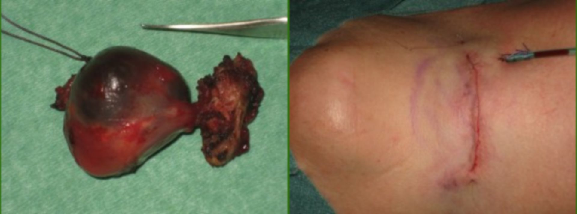 Operation technique: Large cyst of the neck
