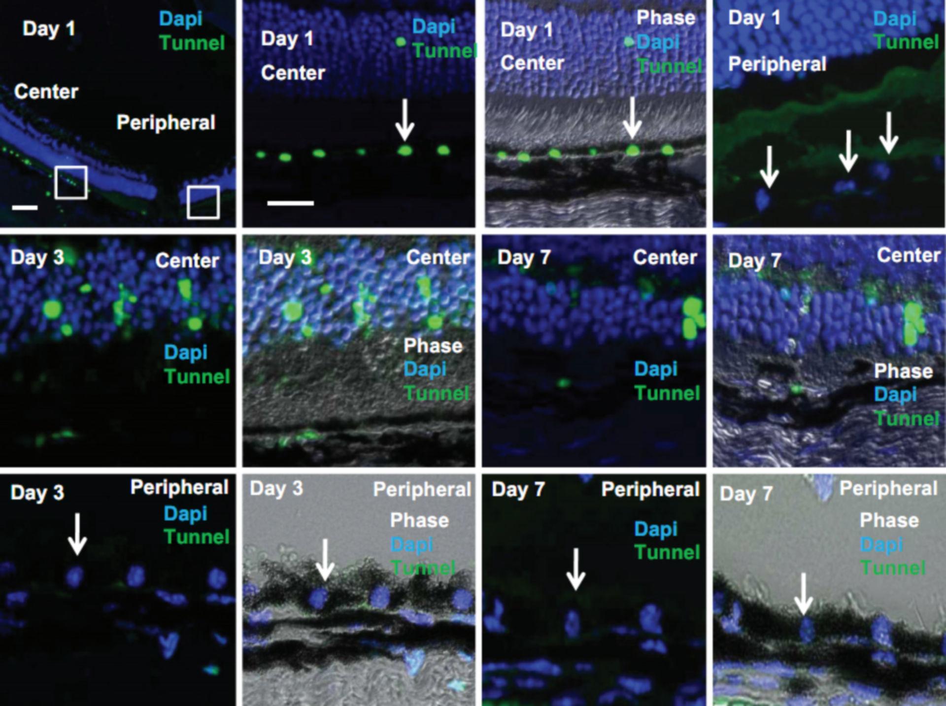 Apoptose des retinalen Pigmentepithels und der Photorezeptoren (2)