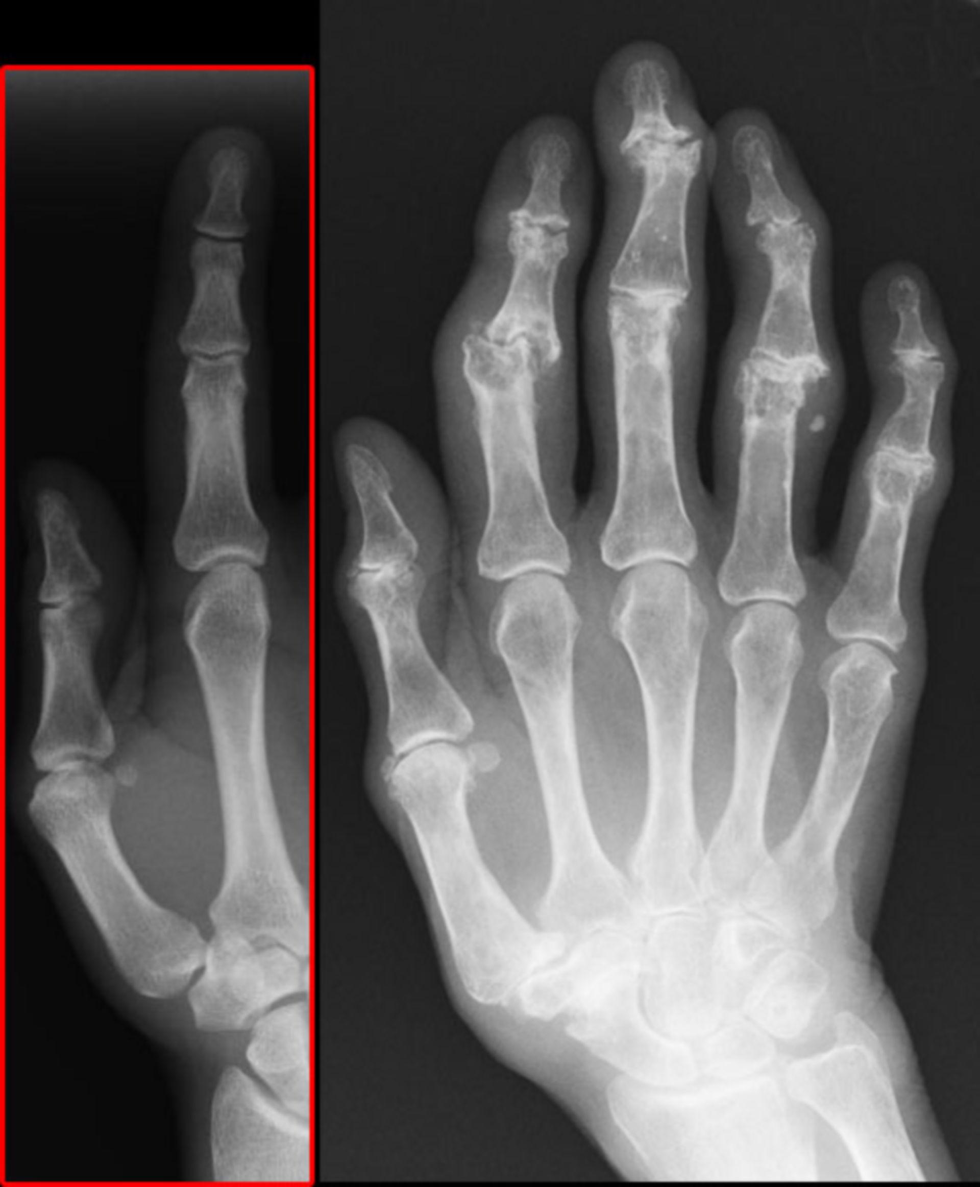 Heberden's node/arthrosis