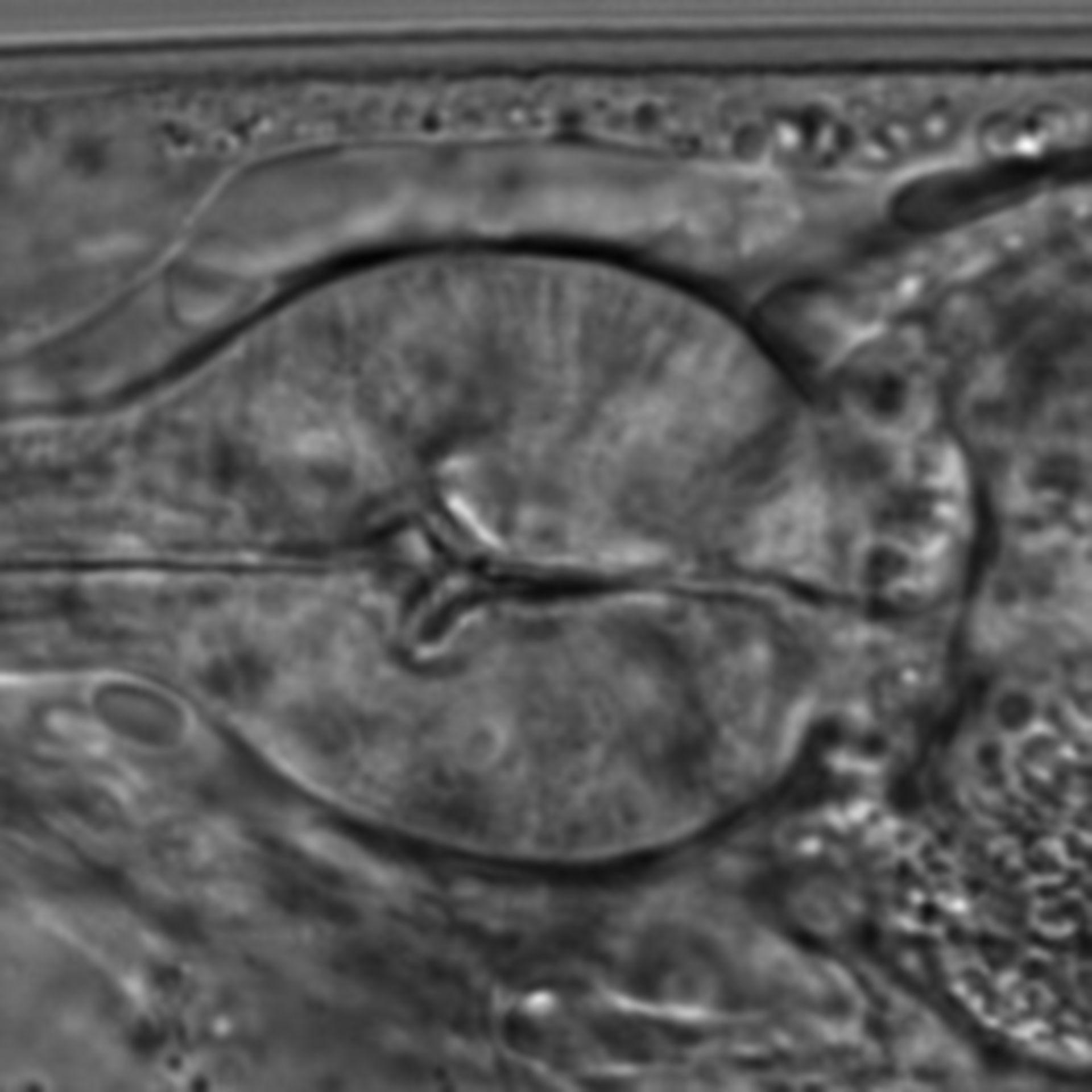 Caenorhabditis elegans - CIL:1590