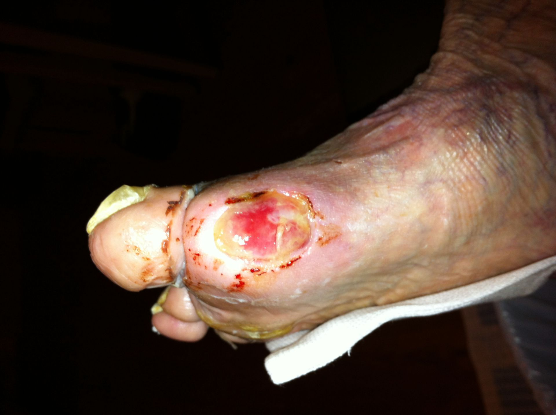 Diabetic foot syndrom
