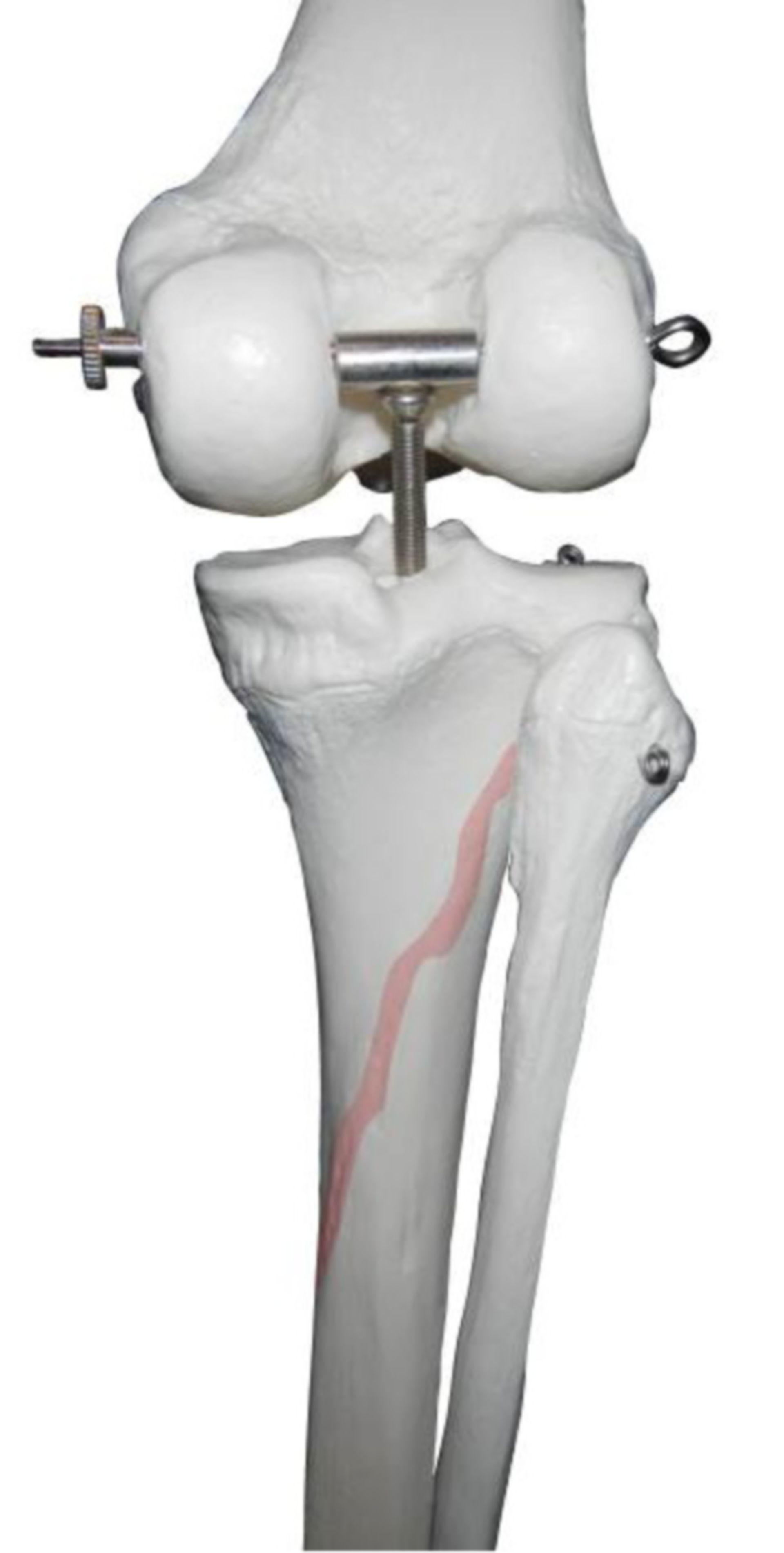 Linea musculi solei (linea del músculo sóleo)