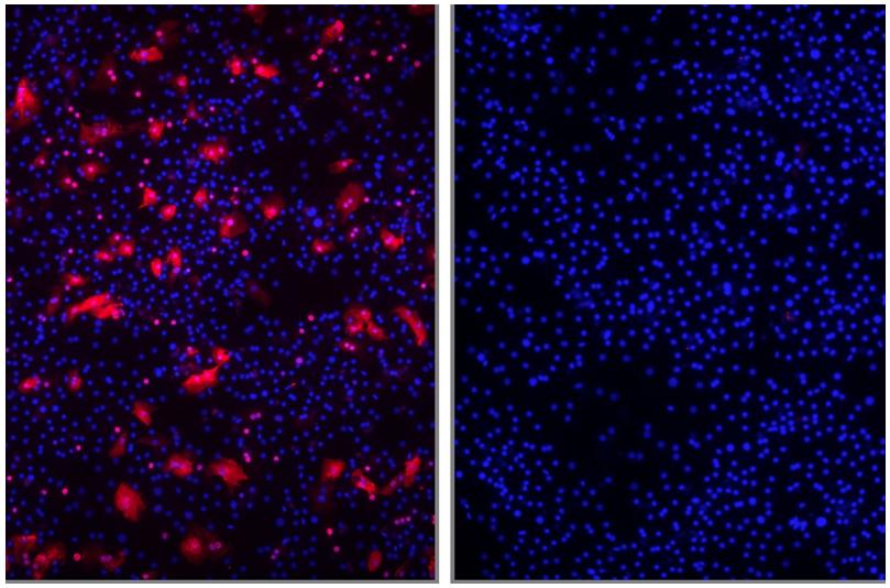 Der Eintritt des Hepatitis-D-Virus (rot) in menschliche Leberzellen (links) wird durch Myrcludex B blockiert (rechts).© Uniklinikum Heidelberg/Urban