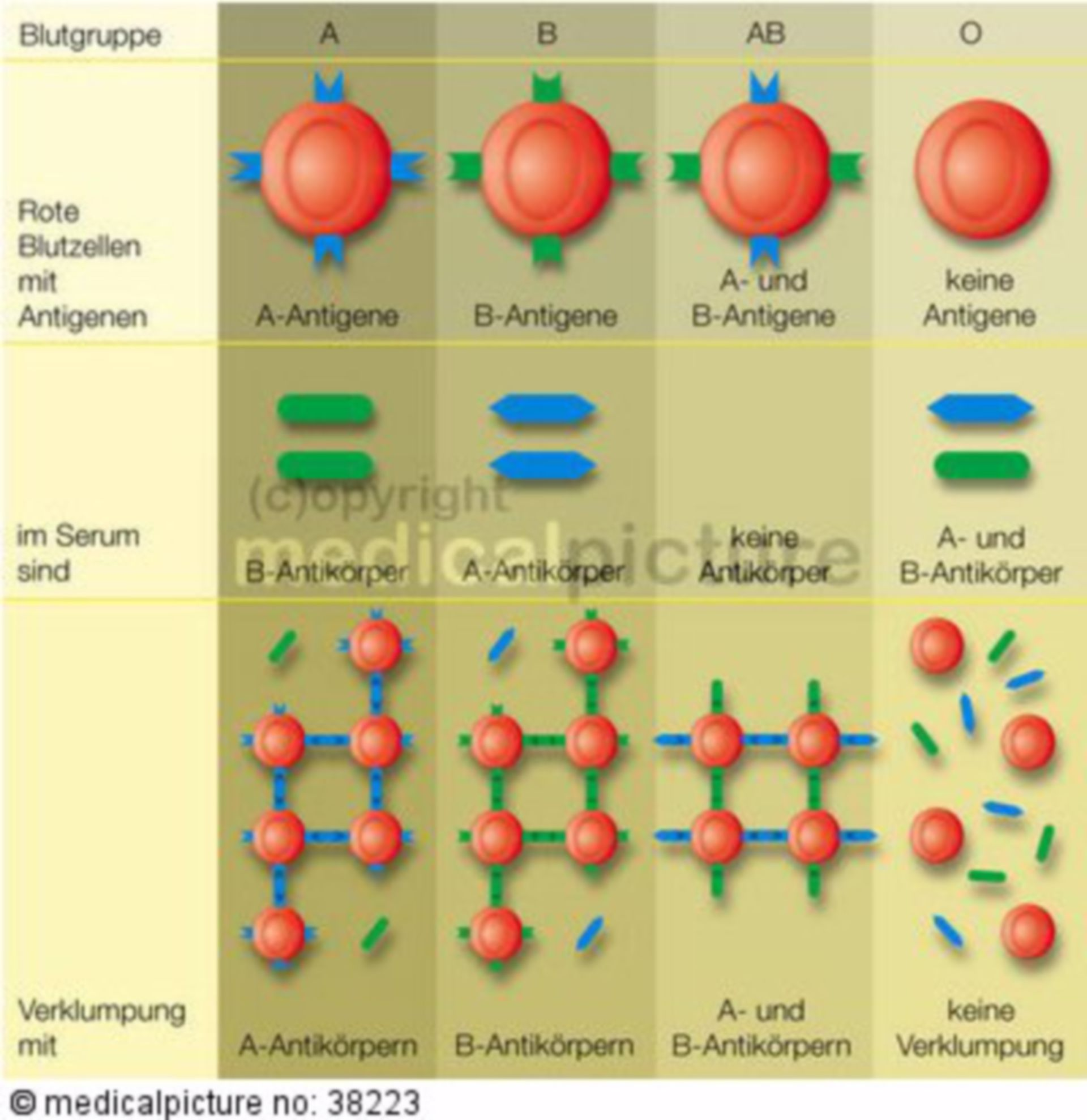 Blood Types, AB0-System