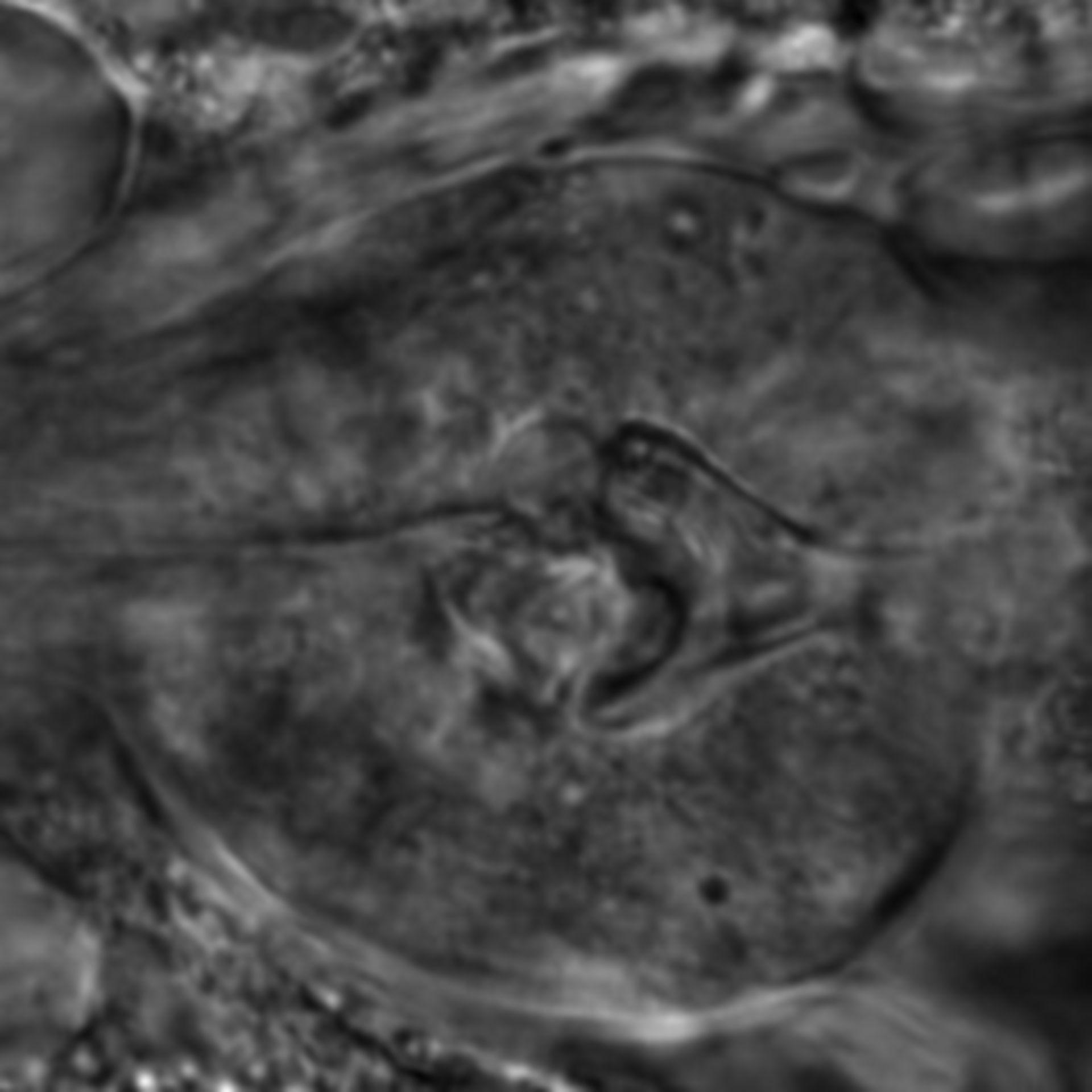 Caenorhabditis elegans - CIL:2695