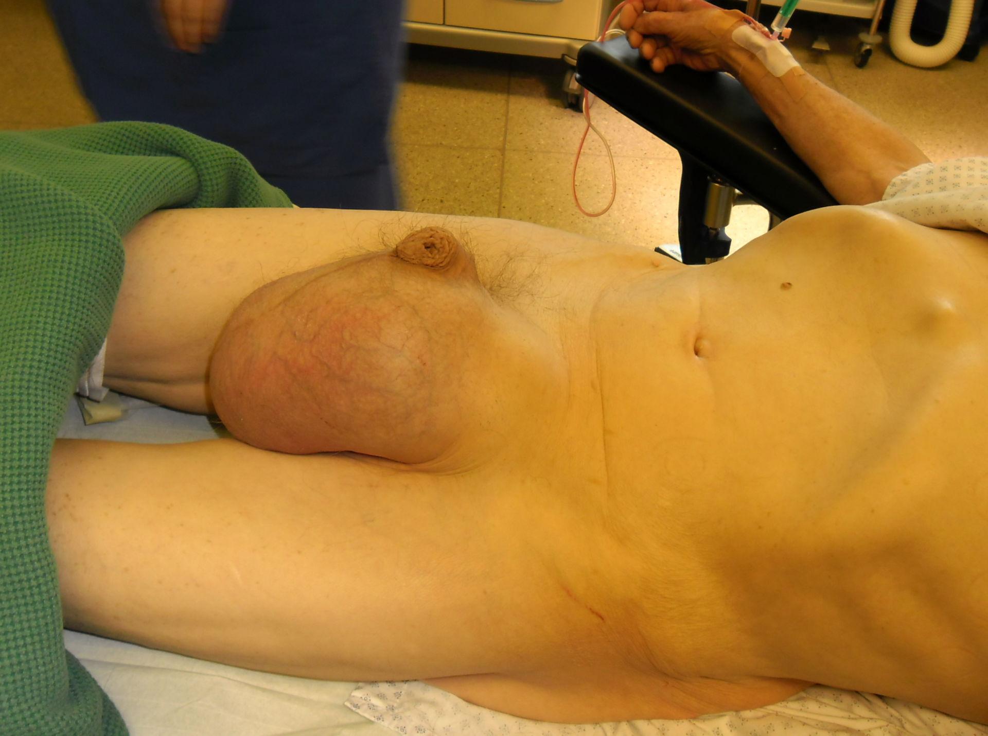 Hernia escrotal