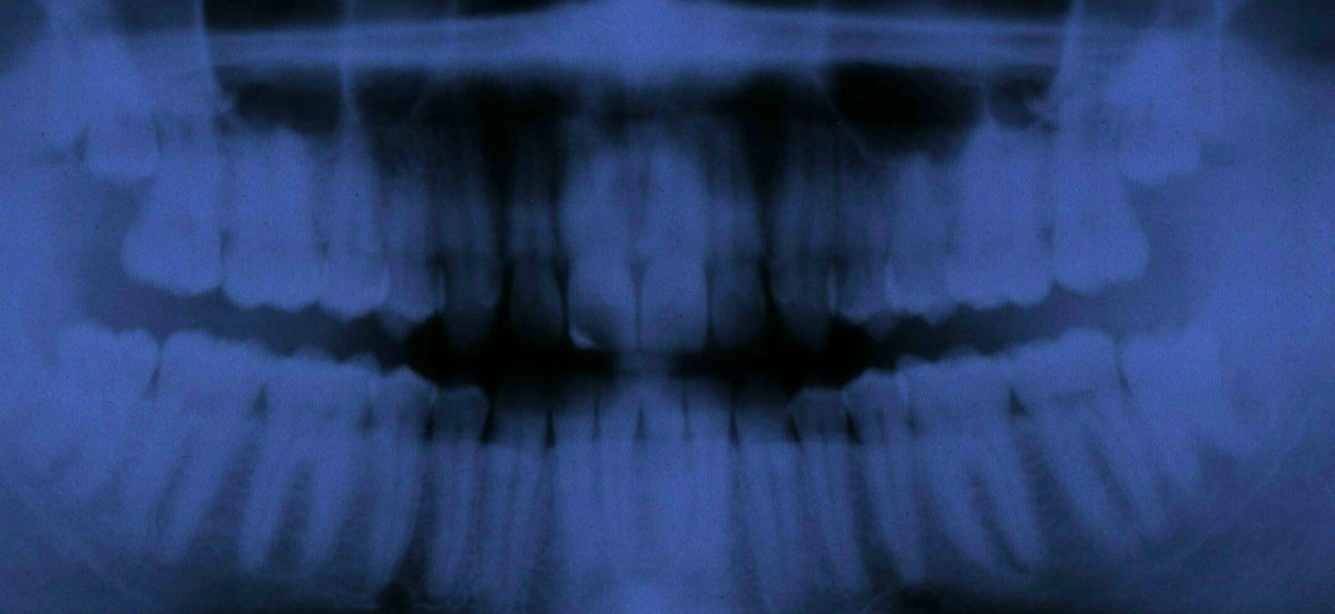 Radiografia dei denti di un ragazzo di 20 anni