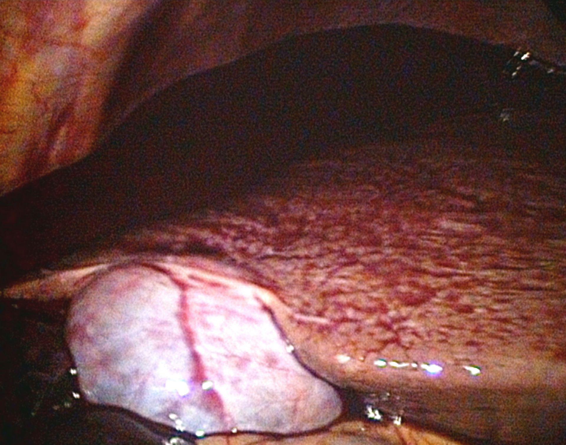 Ruptura del hígado