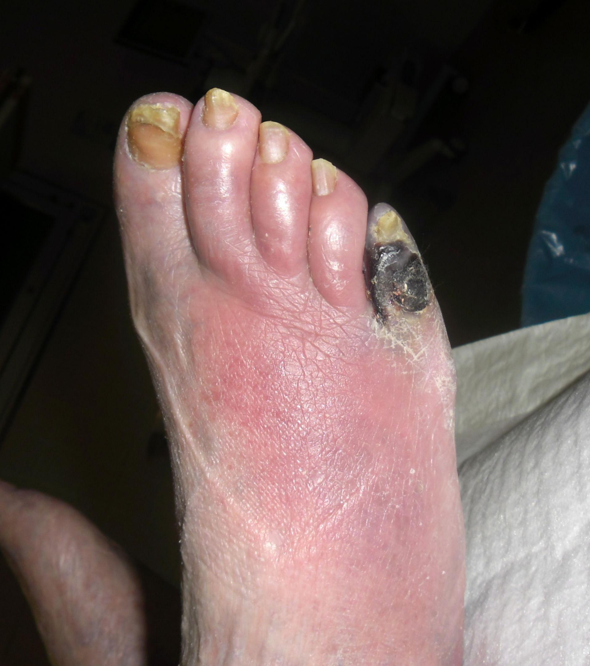 Diabetischer Fuß- Zehengangrän