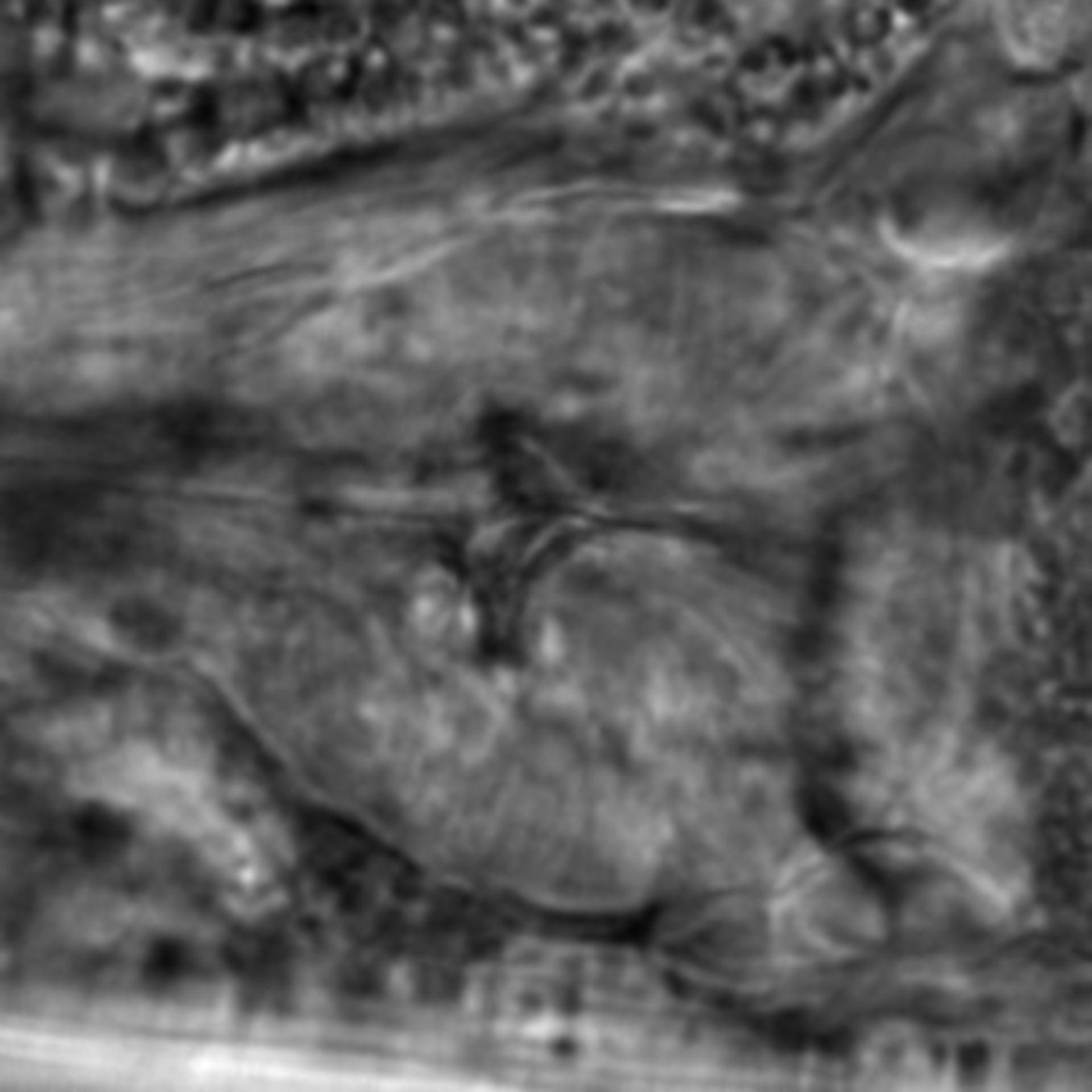 Caenorhabditis elegans - CIL:1797