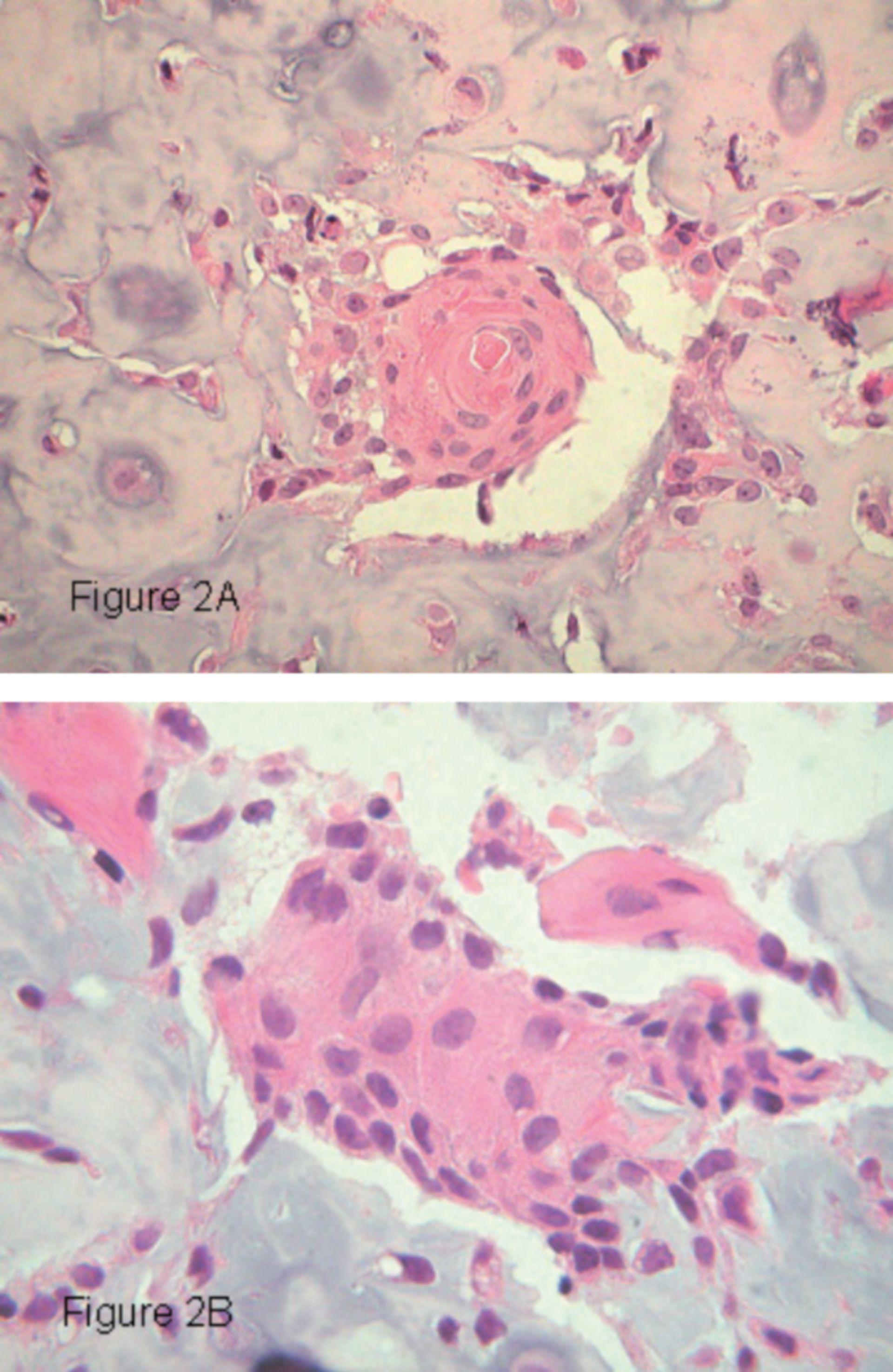 Differenzierung des Plattenepithels und Zytokeratin-Vorkommens in einem Osteosarkom
