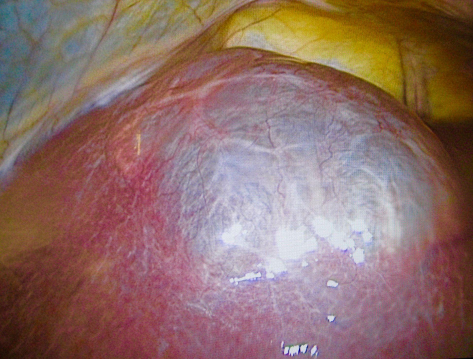 Große Lebercyste-Laparoskopie