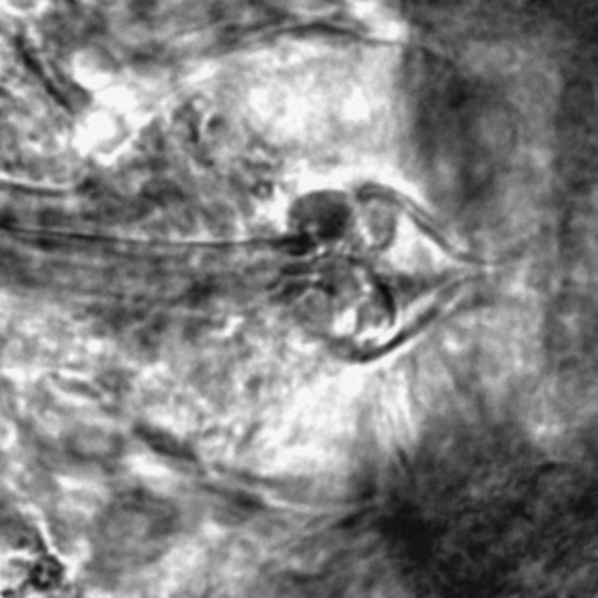 Caenorhabditis elegans - CIL:2544