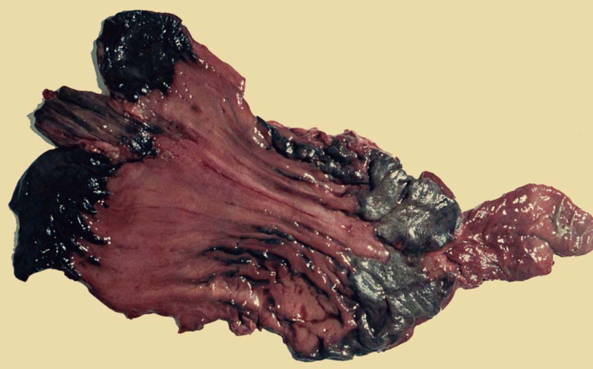 Corrosive injury by ammonium chloride (Suicide)