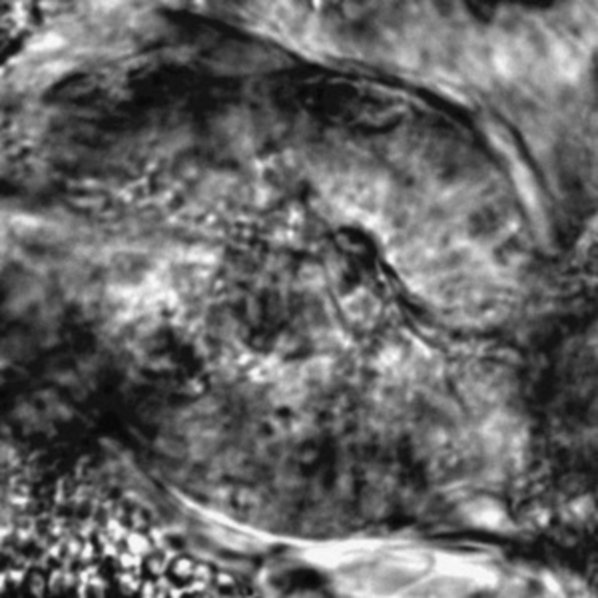 Caenorhabditis elegans - CIL:2697