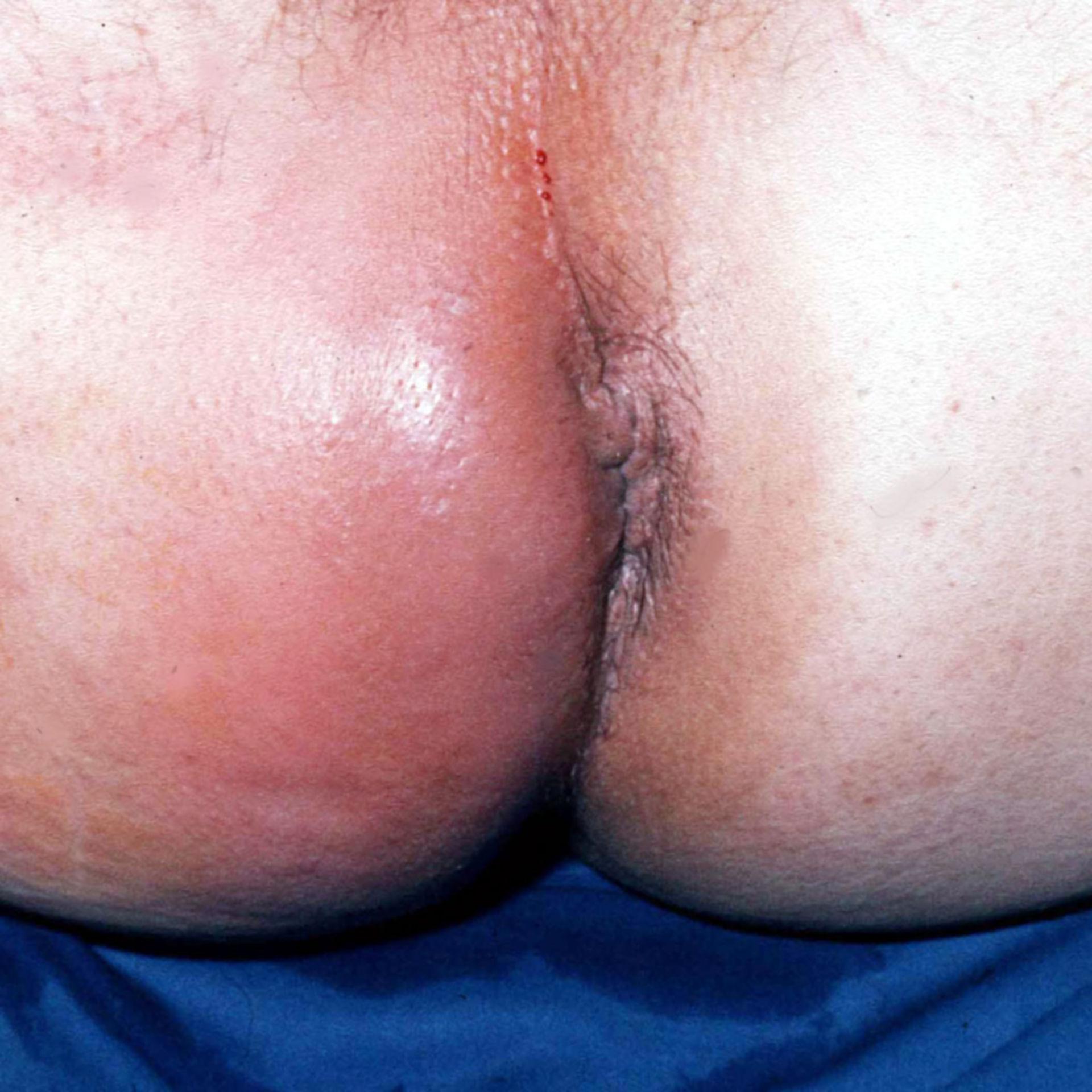 Transsphincteric abscess