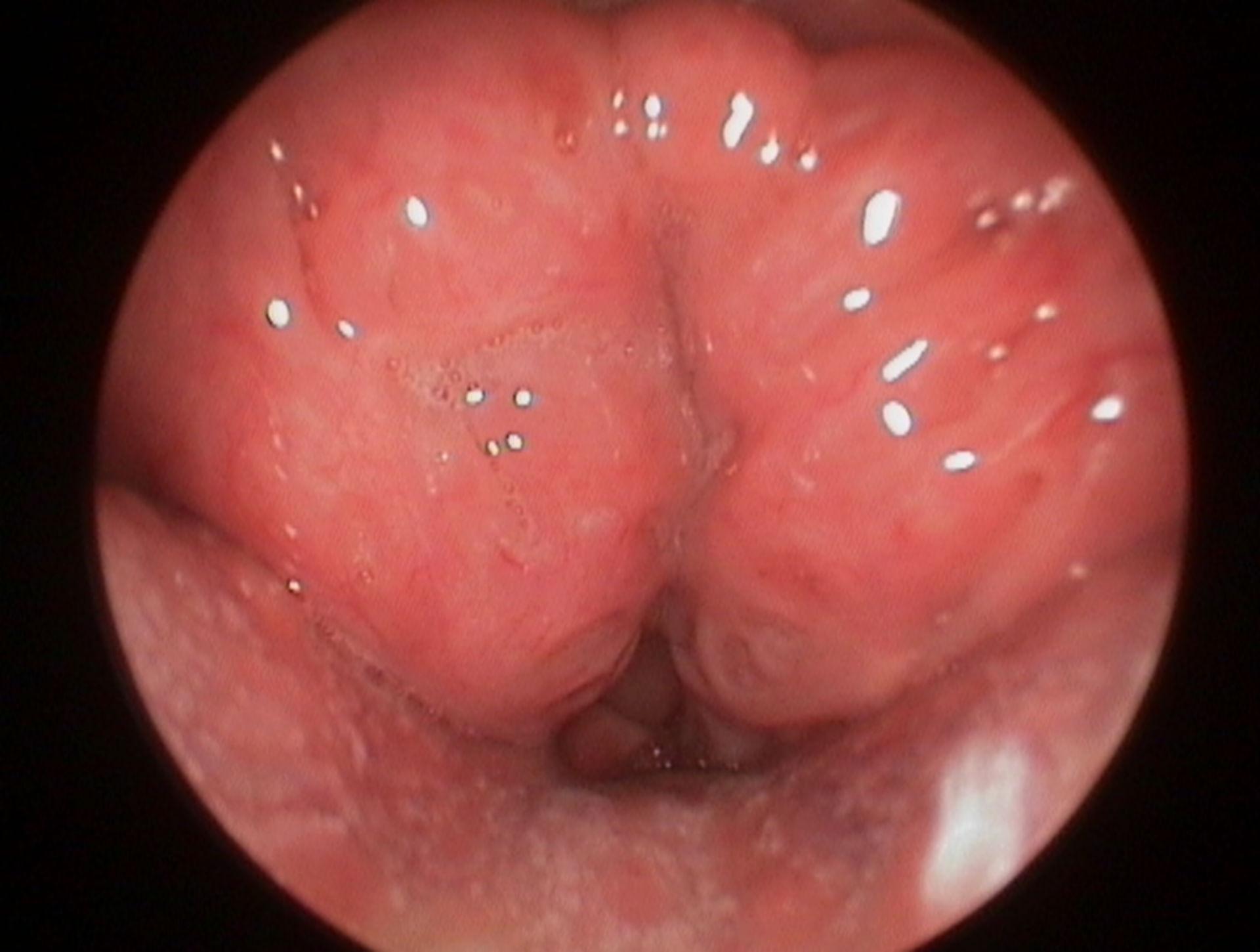 Giant neck tonsils