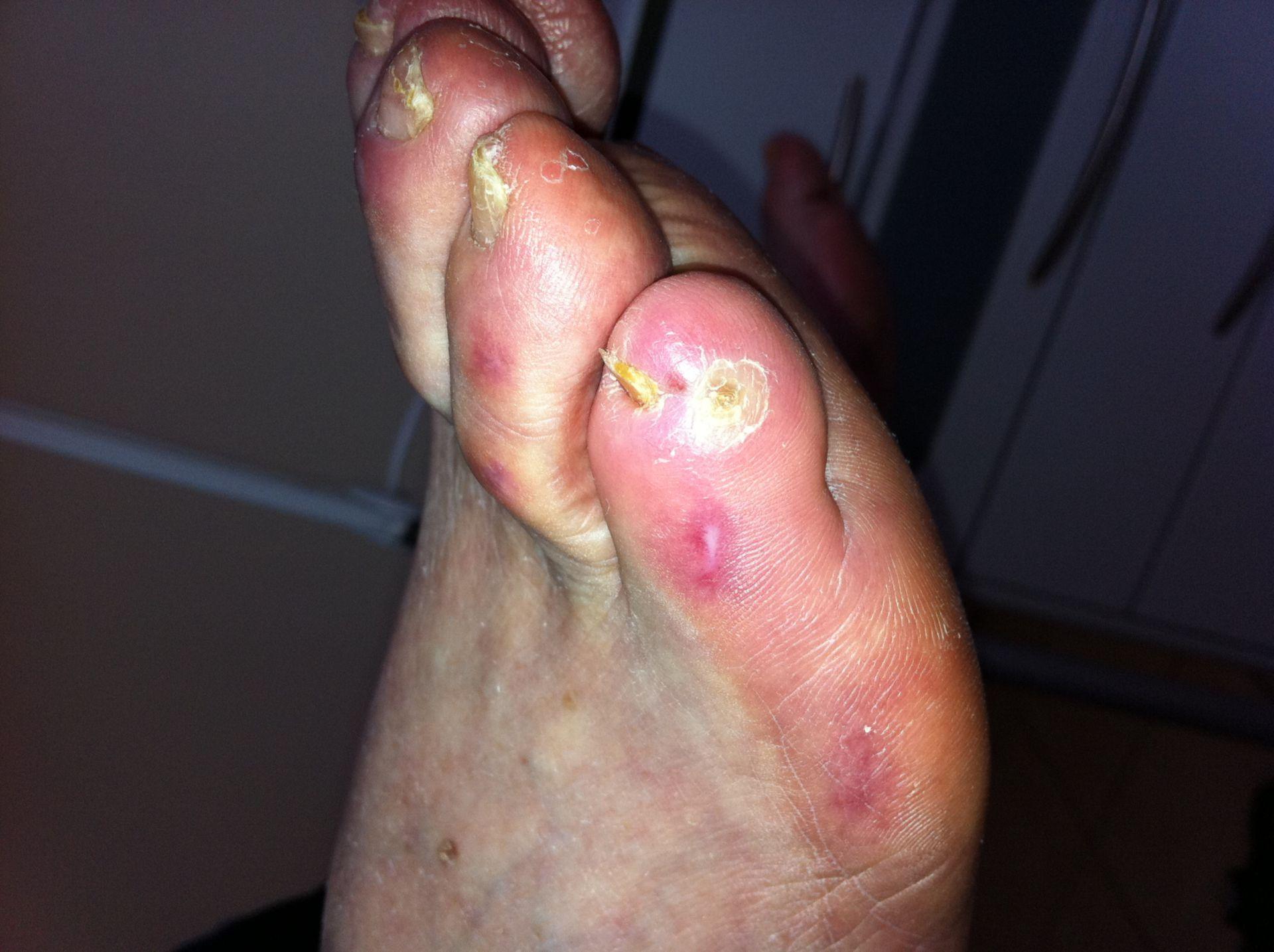 Malum perforans on the small toe