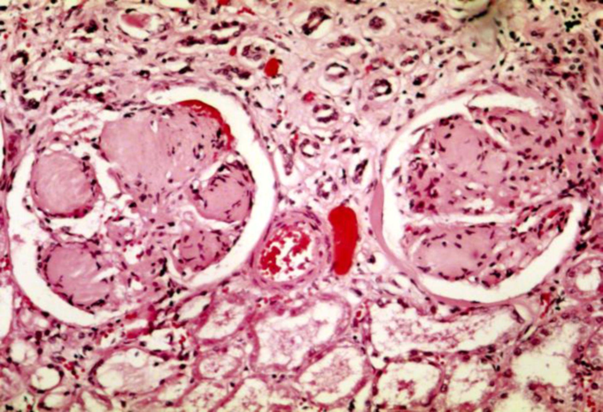 Diabetische Nephropathie (Histologie)