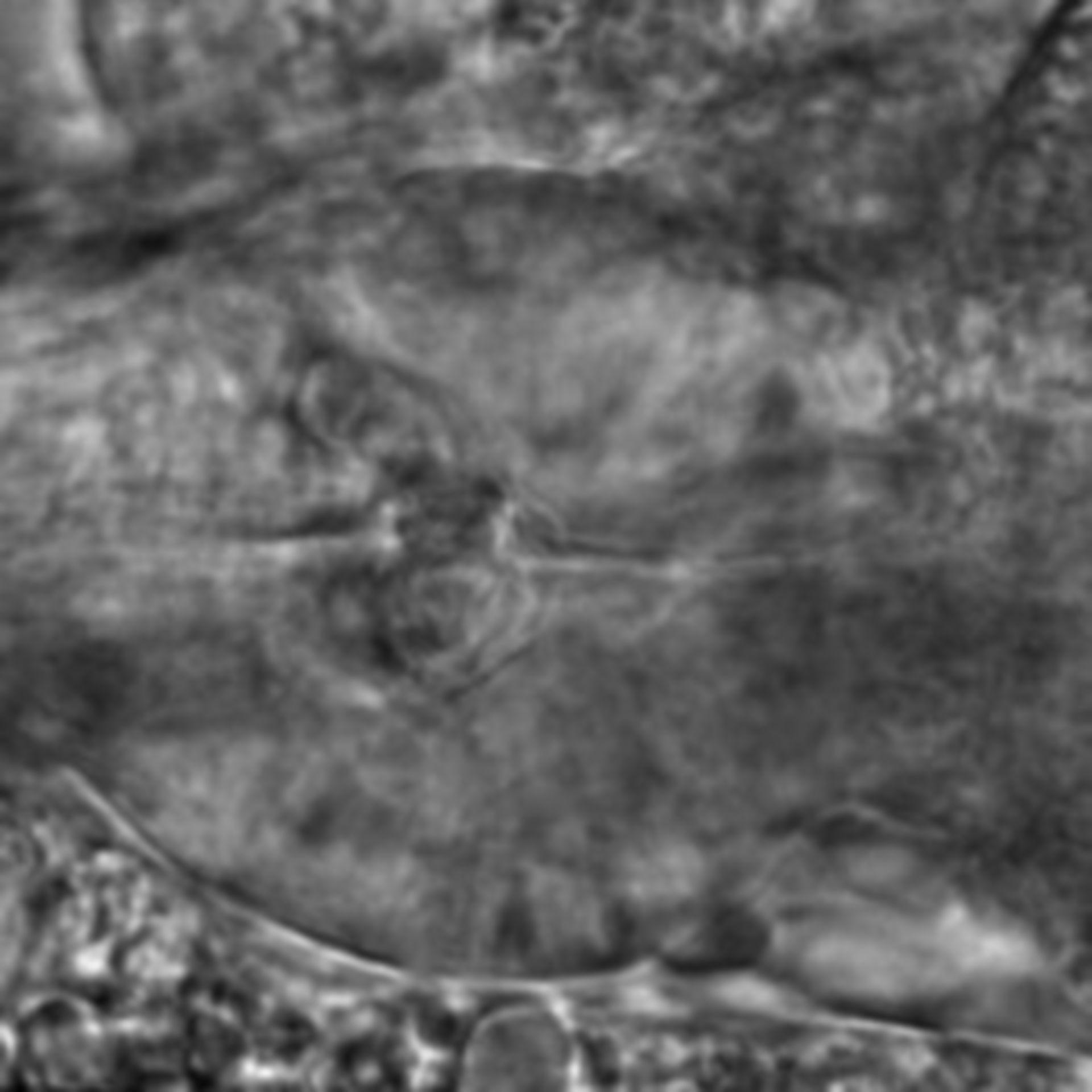 Caenorhabditis elegans - CIL:2129