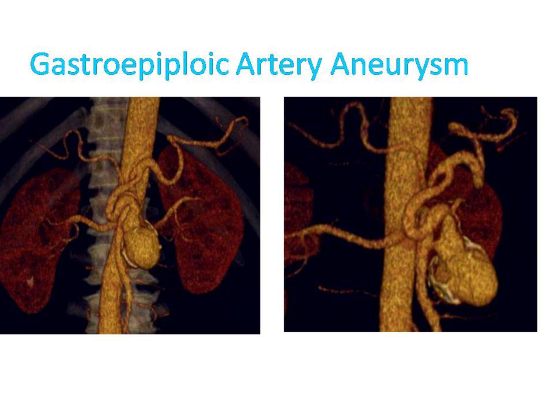 Gastroepiploic artery aneurysm (2)