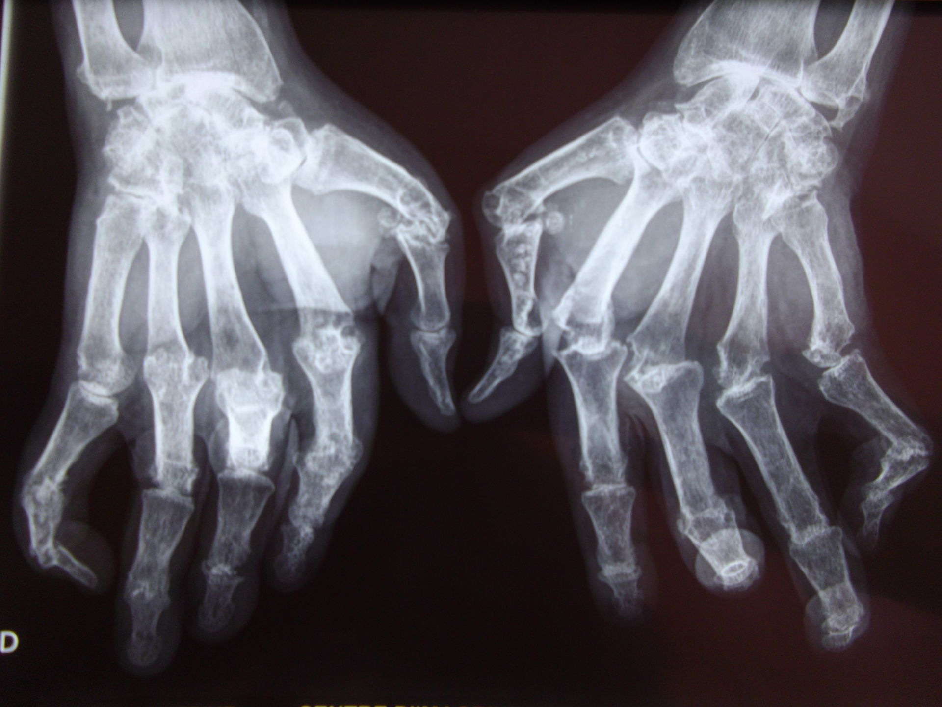 Artritis reumatoide de la mano