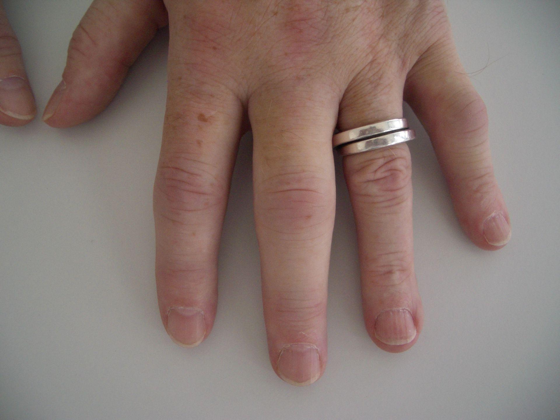 Artrite reumatoide iniziale