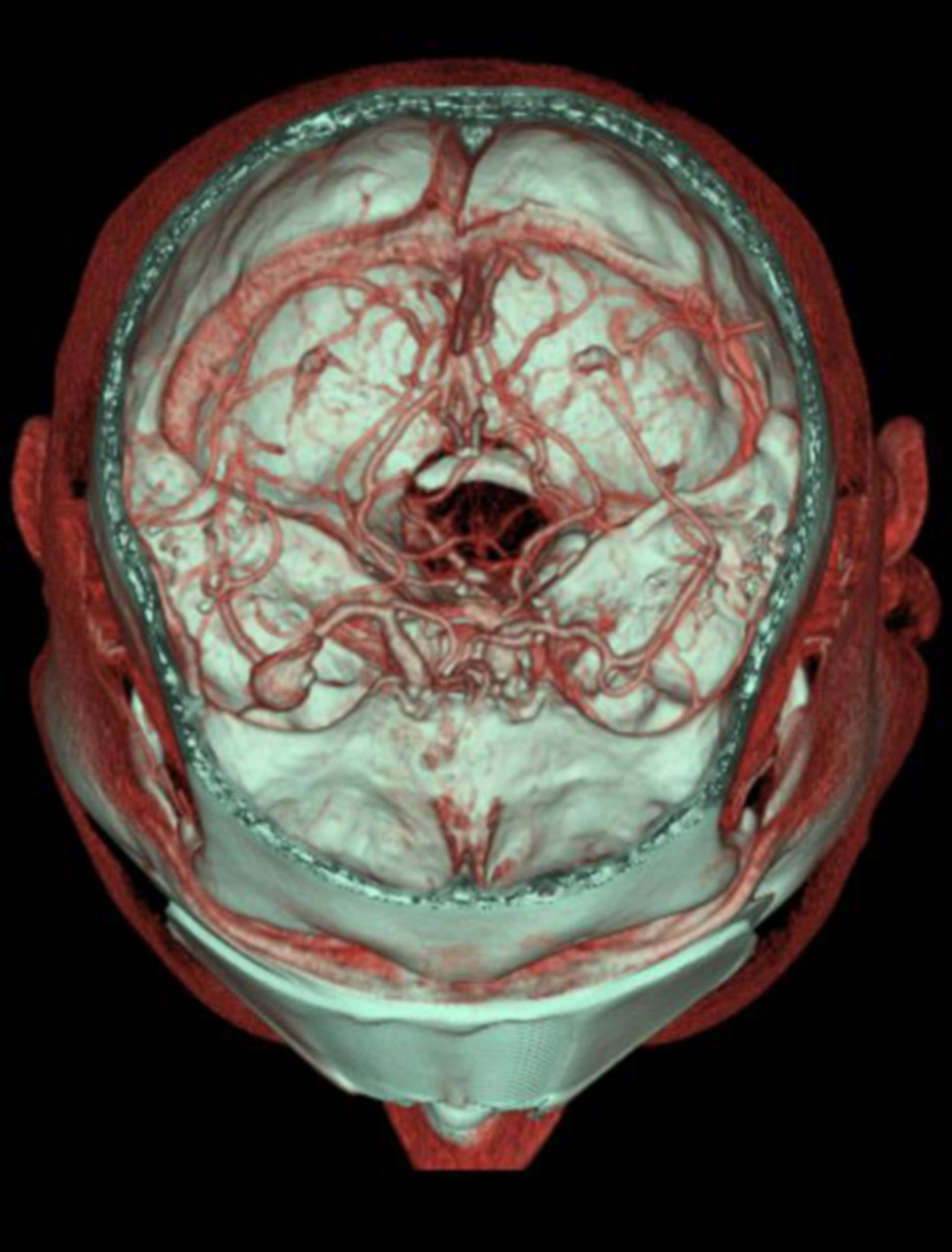 Aneurysma im Bereich der Trifurcation der Arteria cerebri media (CT-Angiographie)