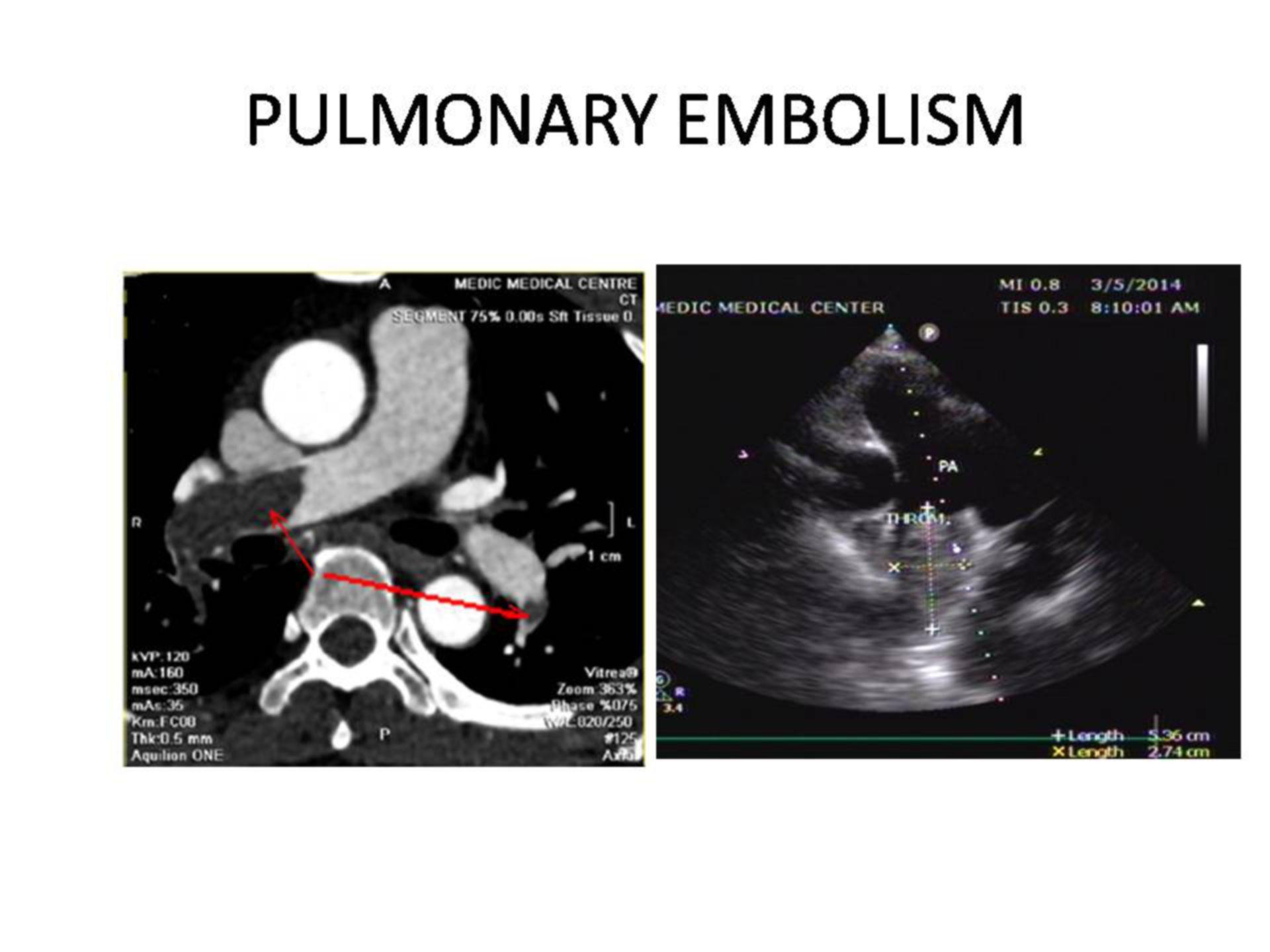 Embolismo pulmonar (1)