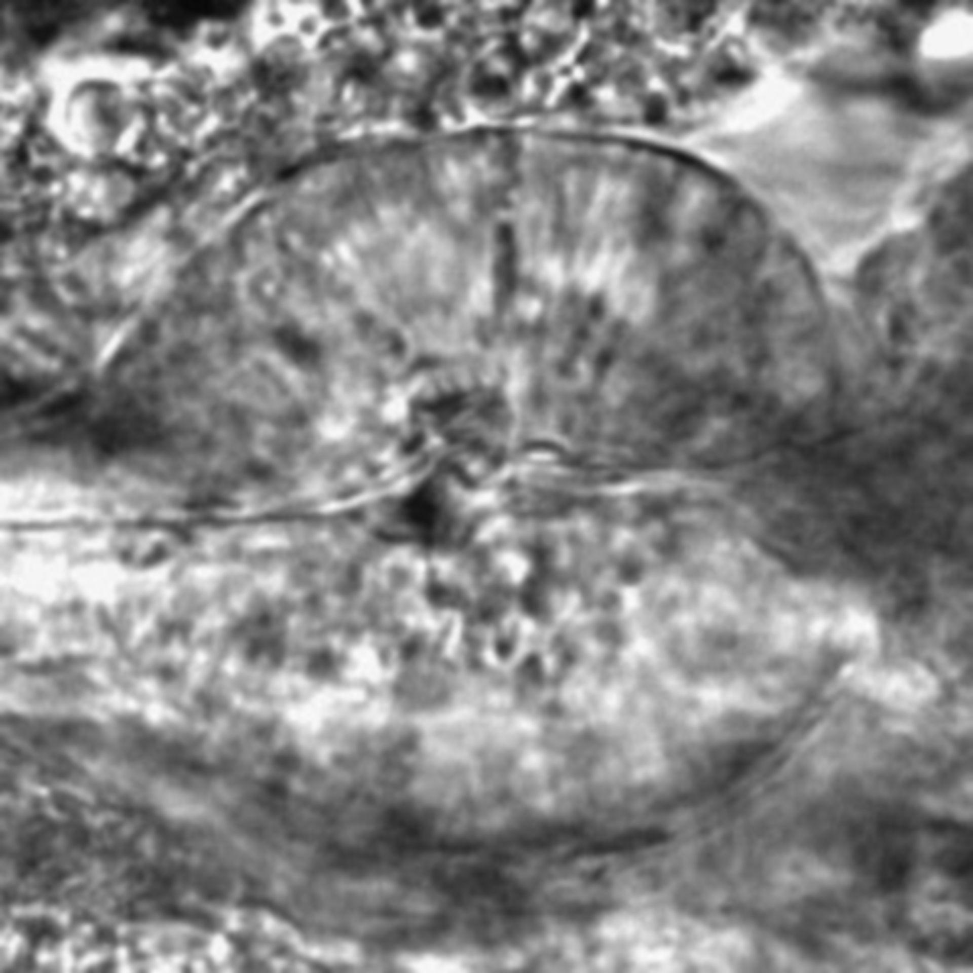 Caenorhabditis elegans - CIL:2305