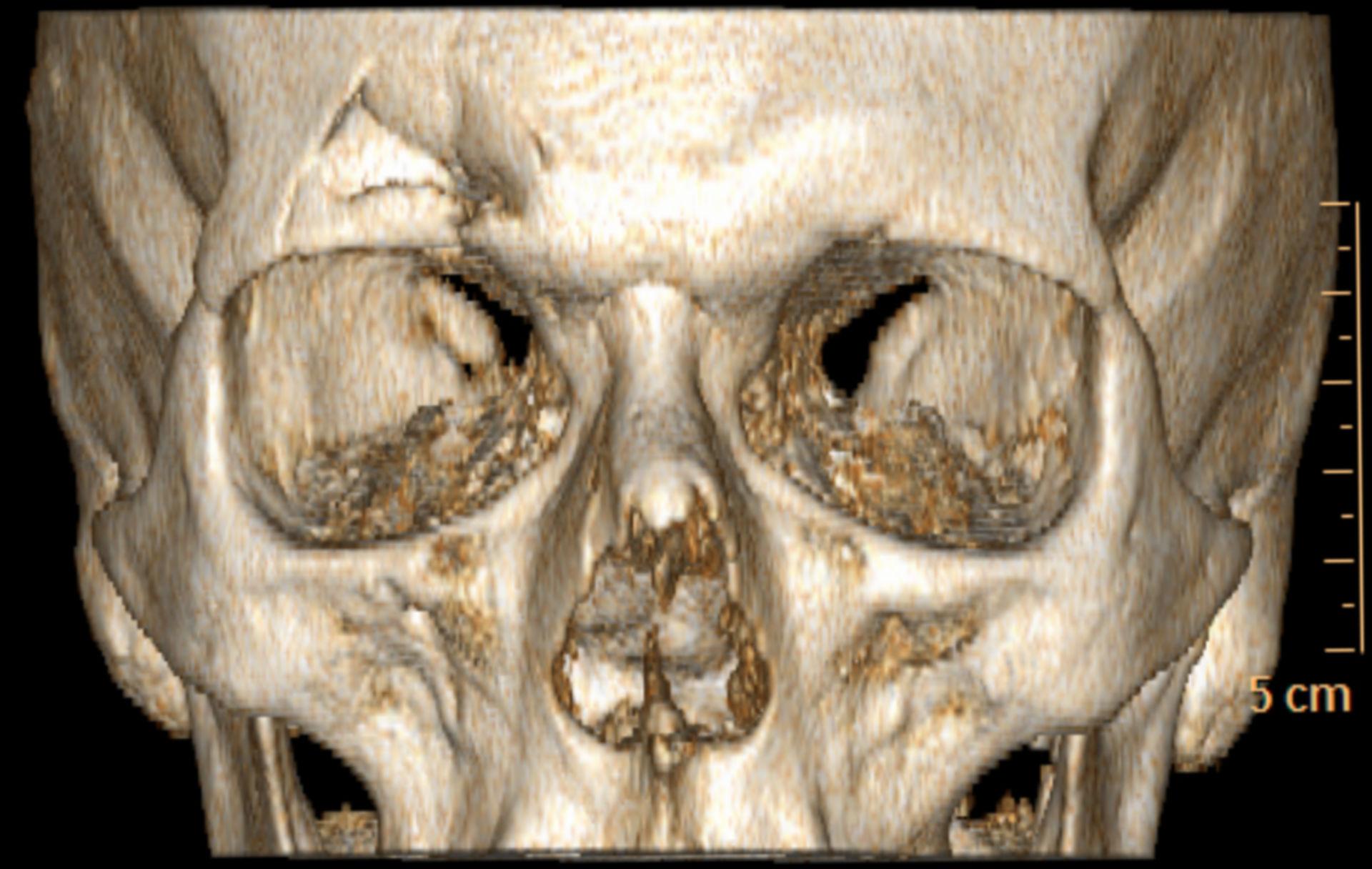Fraktur der Stirnhöhle (CT-Rekonstruktion)