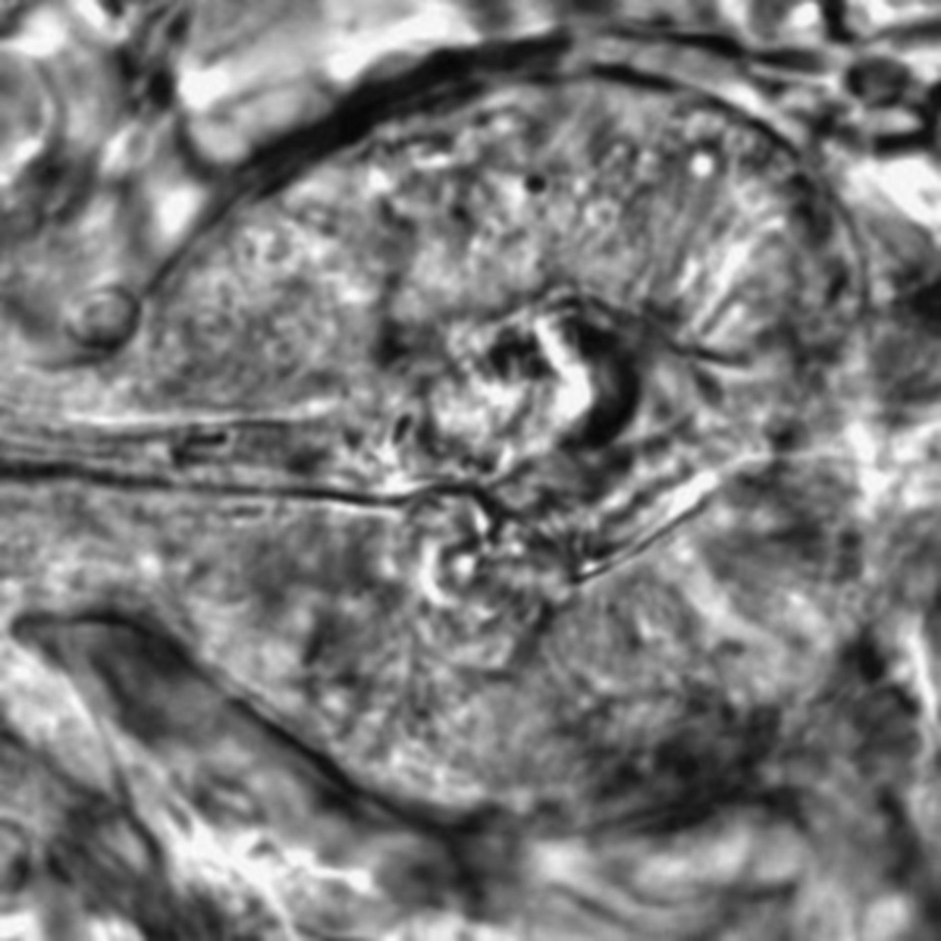 Caenorhabditis elegans - CIL:2588
