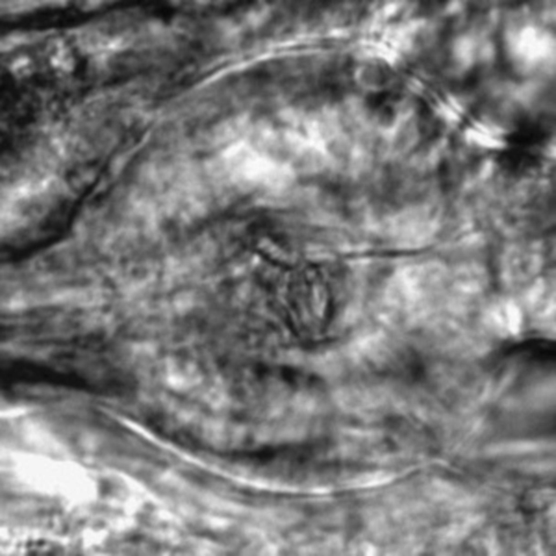 Caenorhabditis elegans - CIL:2837