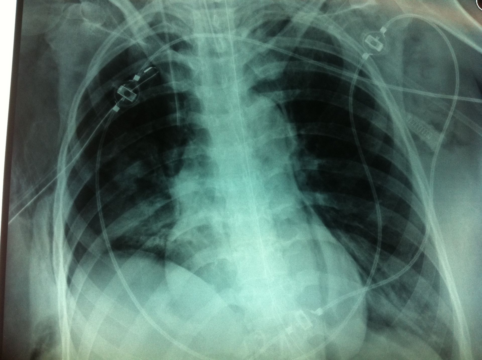 Tension pneumothorax after relief