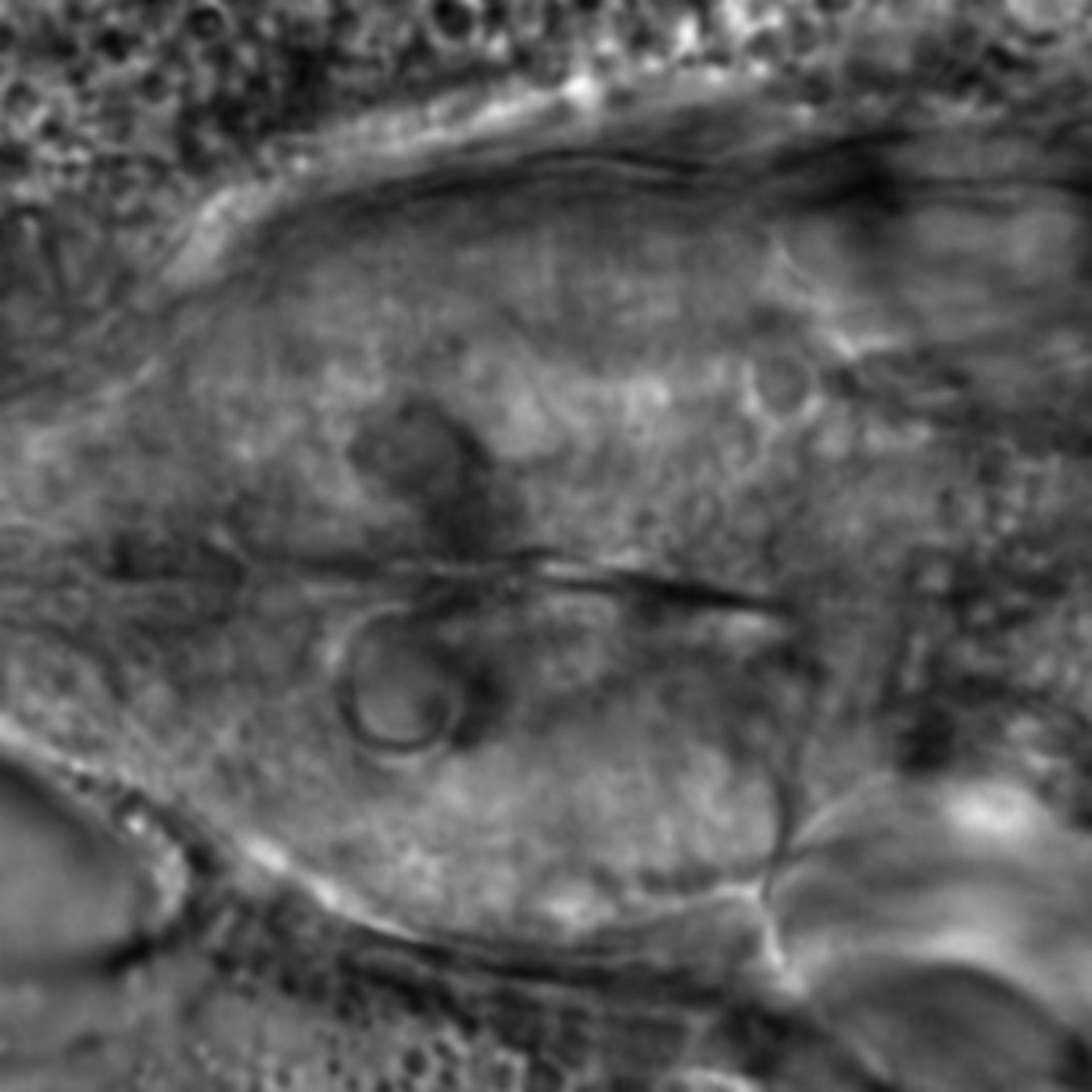 Caenorhabditis elegans - CIL:1933