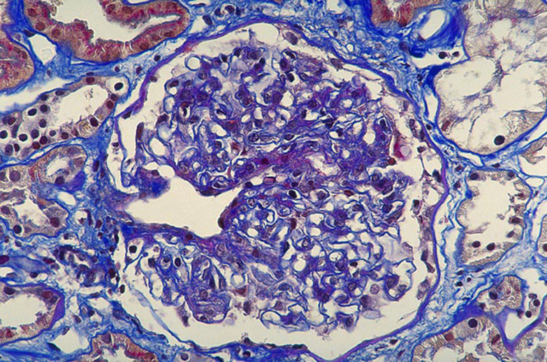 Purpura Schönlein Henoch: proliferative Glomerulonephritis (Detail)