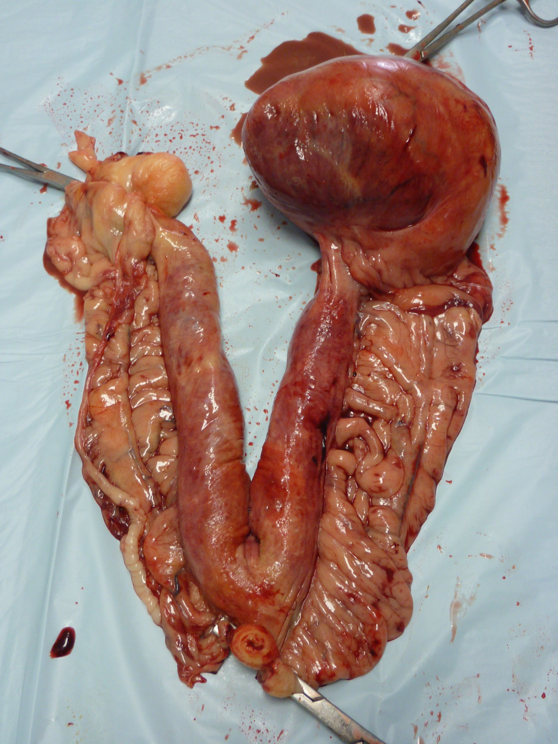 Tumore ovarico e piometra