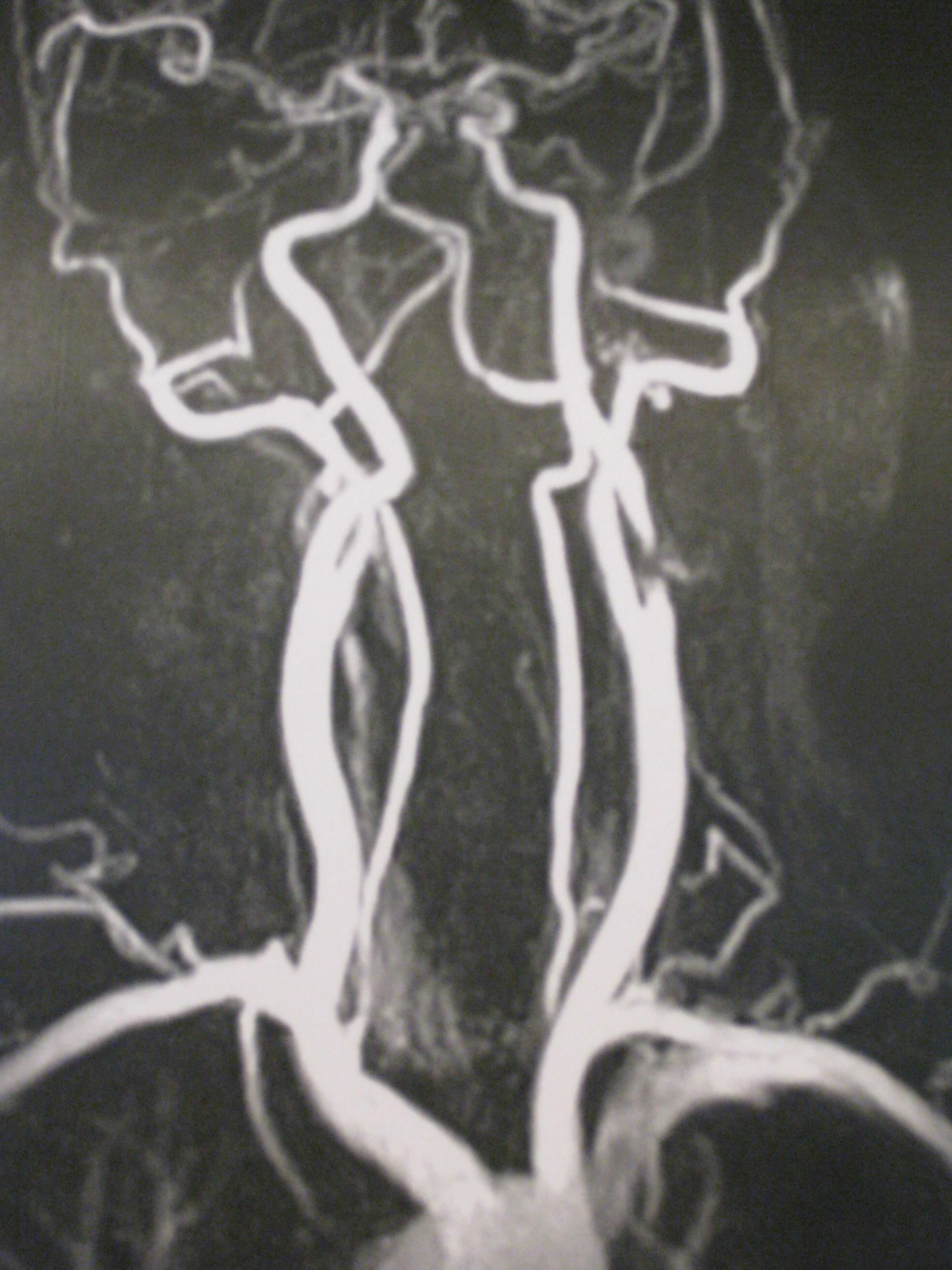 Carotisstenose links-MR Angiografie