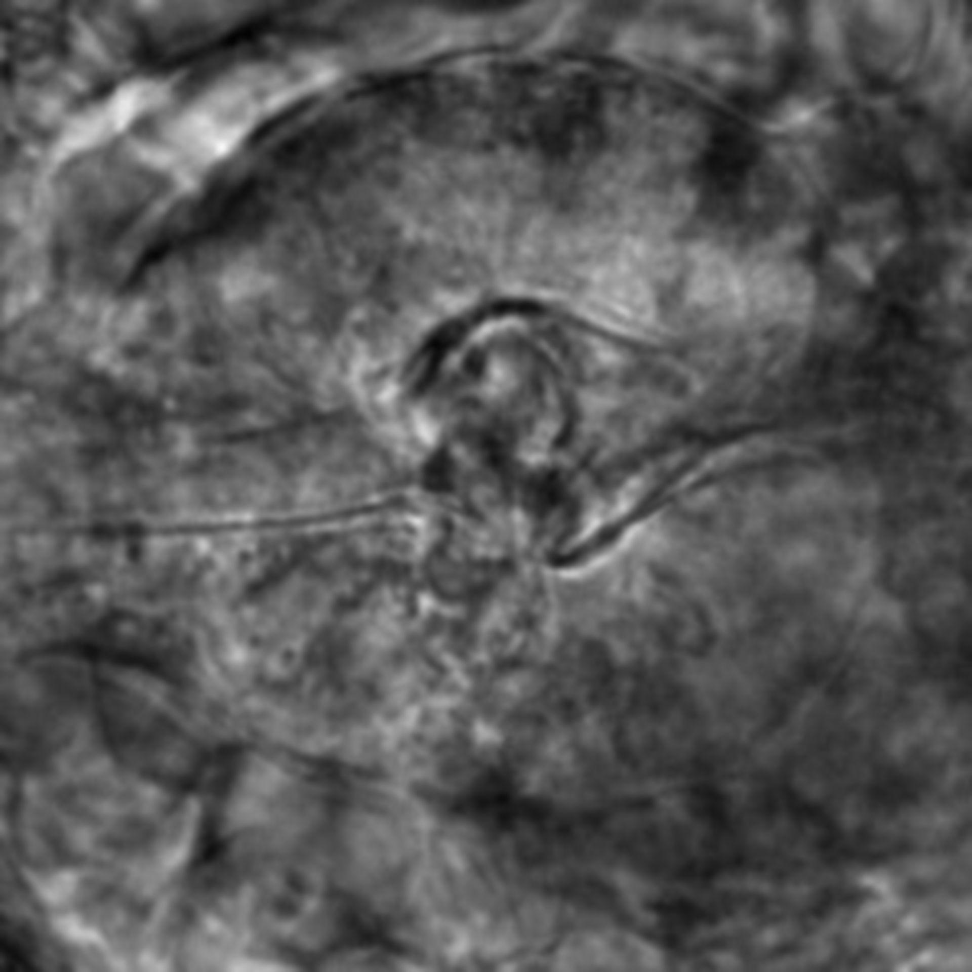 Caenorhabditis elegans - CIL:2561