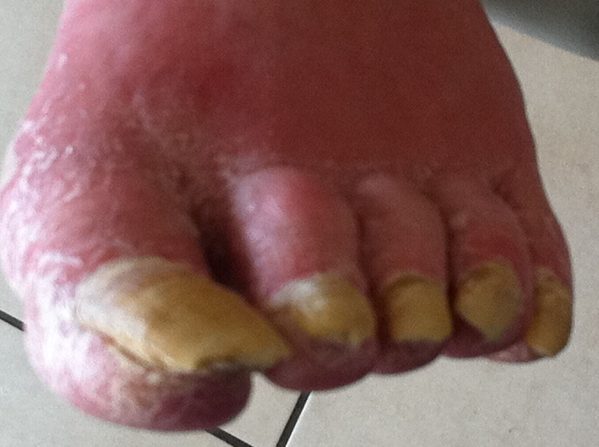 Long time no podiatry care.