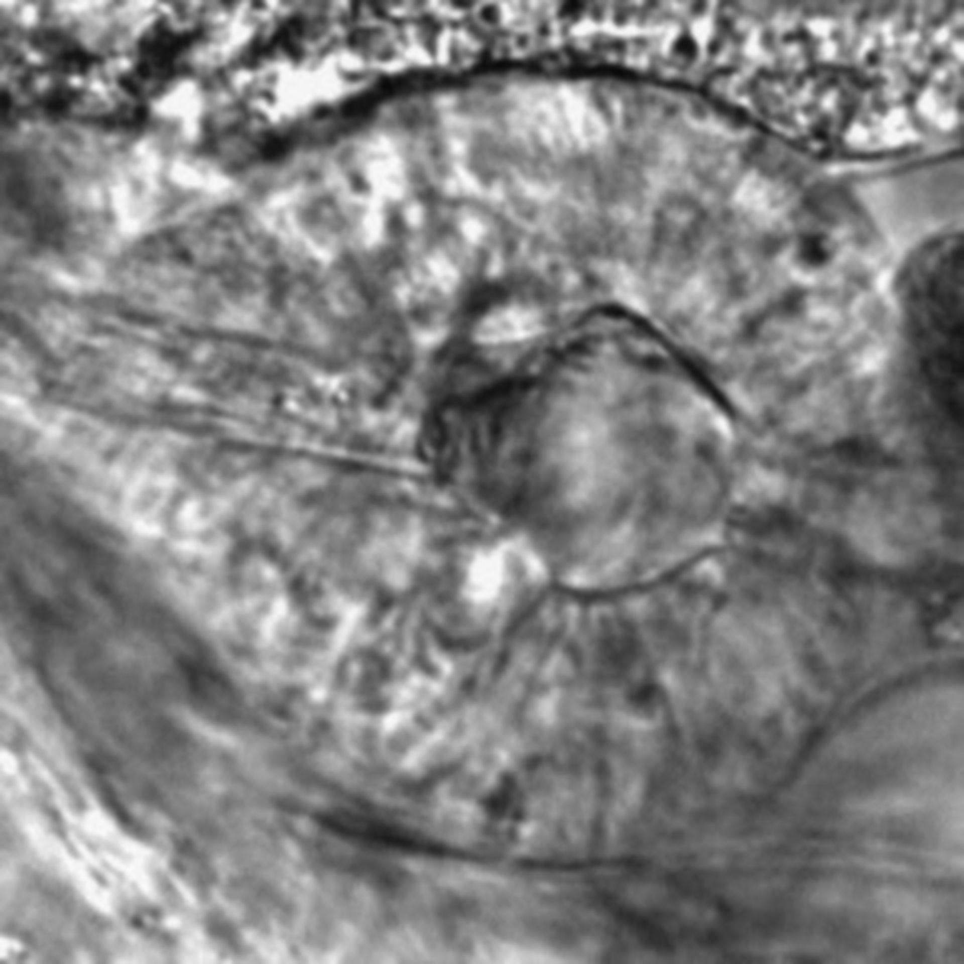 Caenorhabditis elegans - CIL:2592