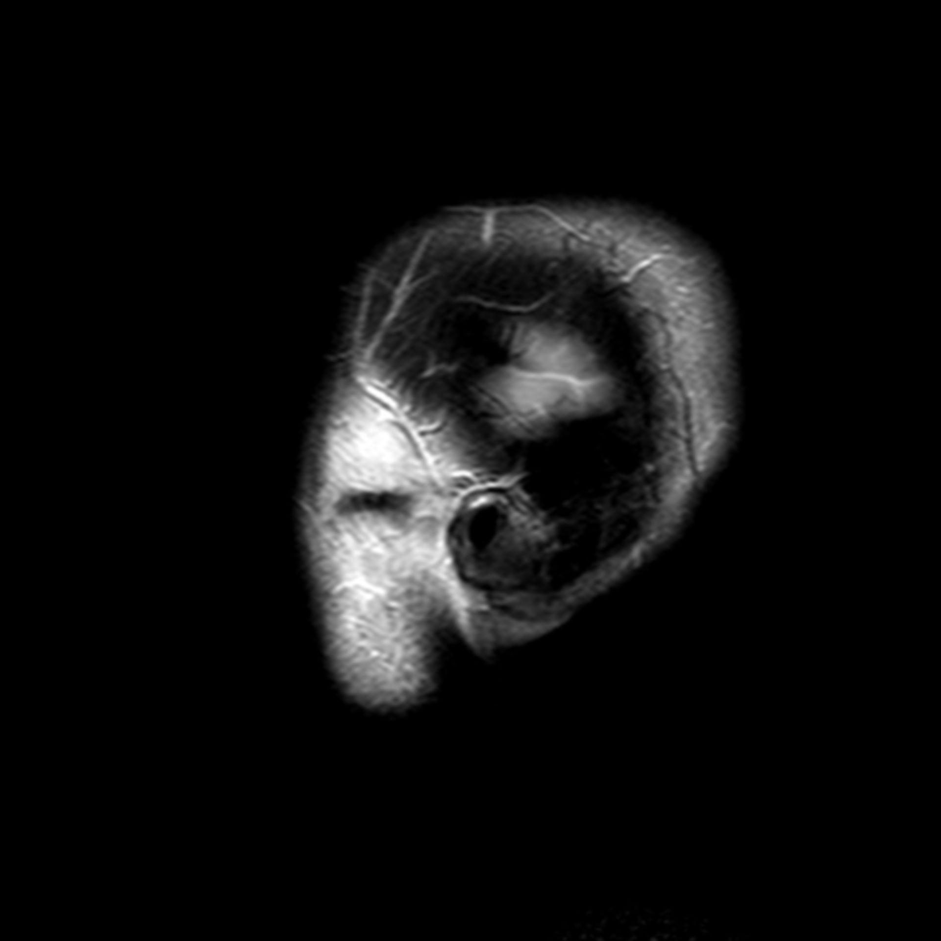 (32/34) MRT Schädel in Sagittalebene, T₂‐gewichtet