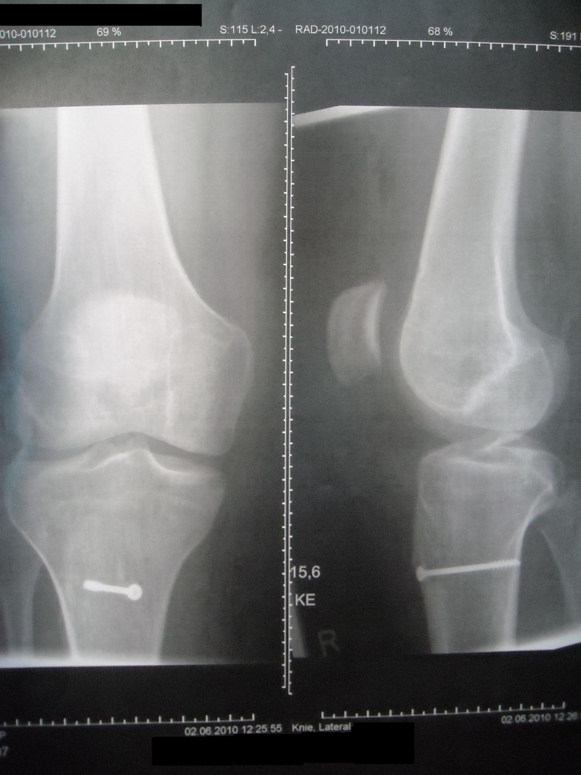 Röntgenaufnahme nach Patella OP nach Roux houser