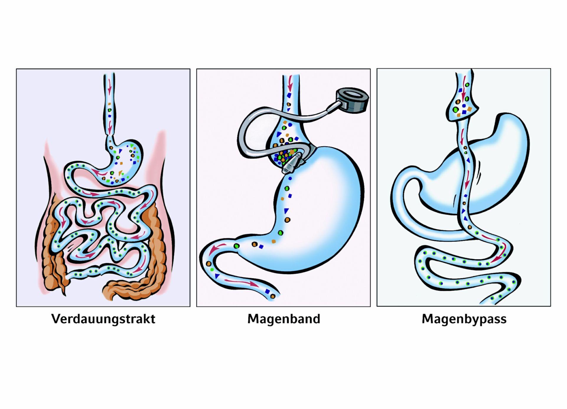 Adipositas-Chirurgie