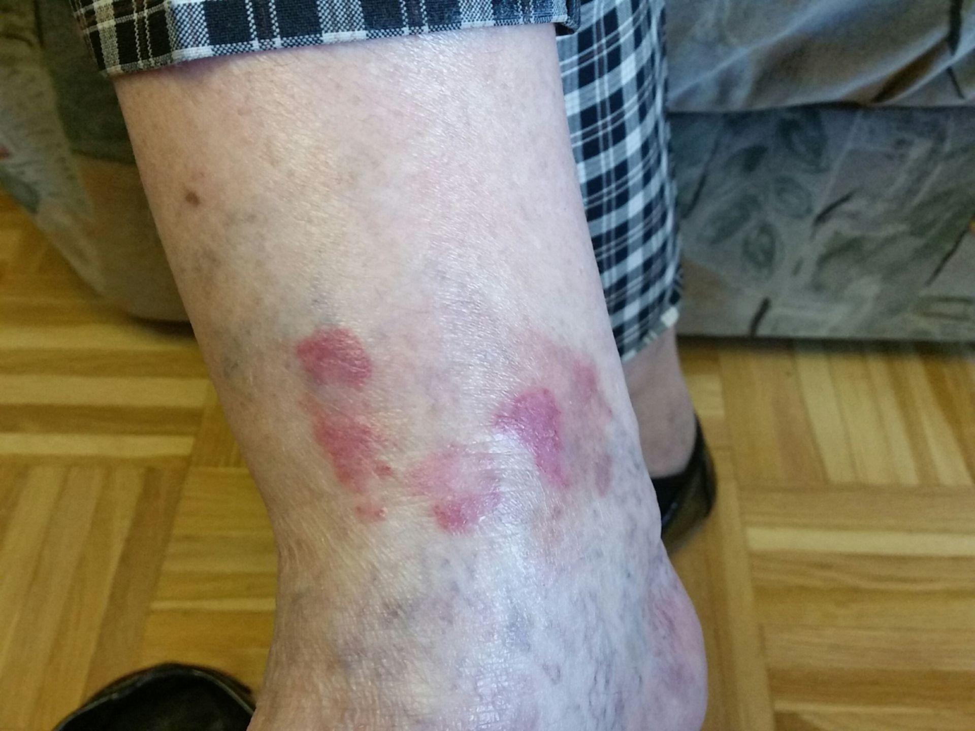 Impetiginized nummular eczema? Picture 2