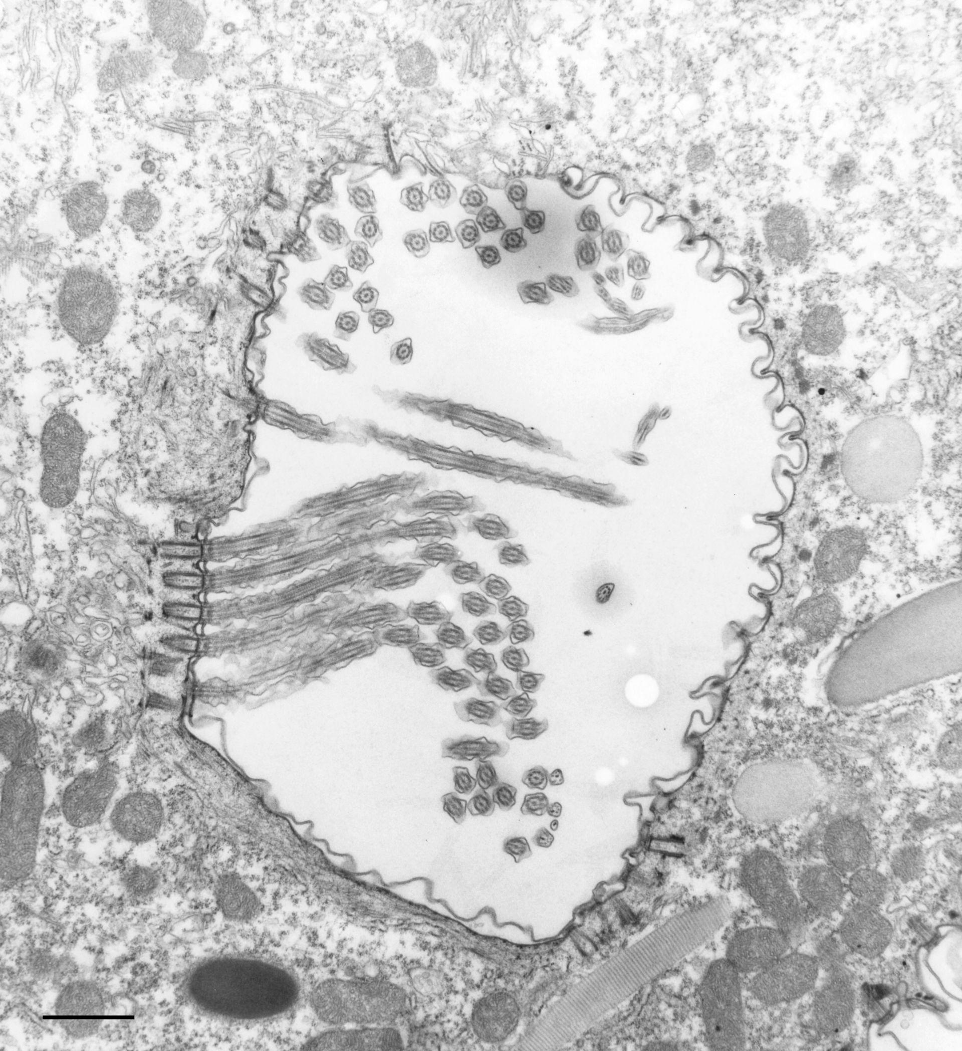 Paramecium caudatum (Oral apparatus) - CIL:36775