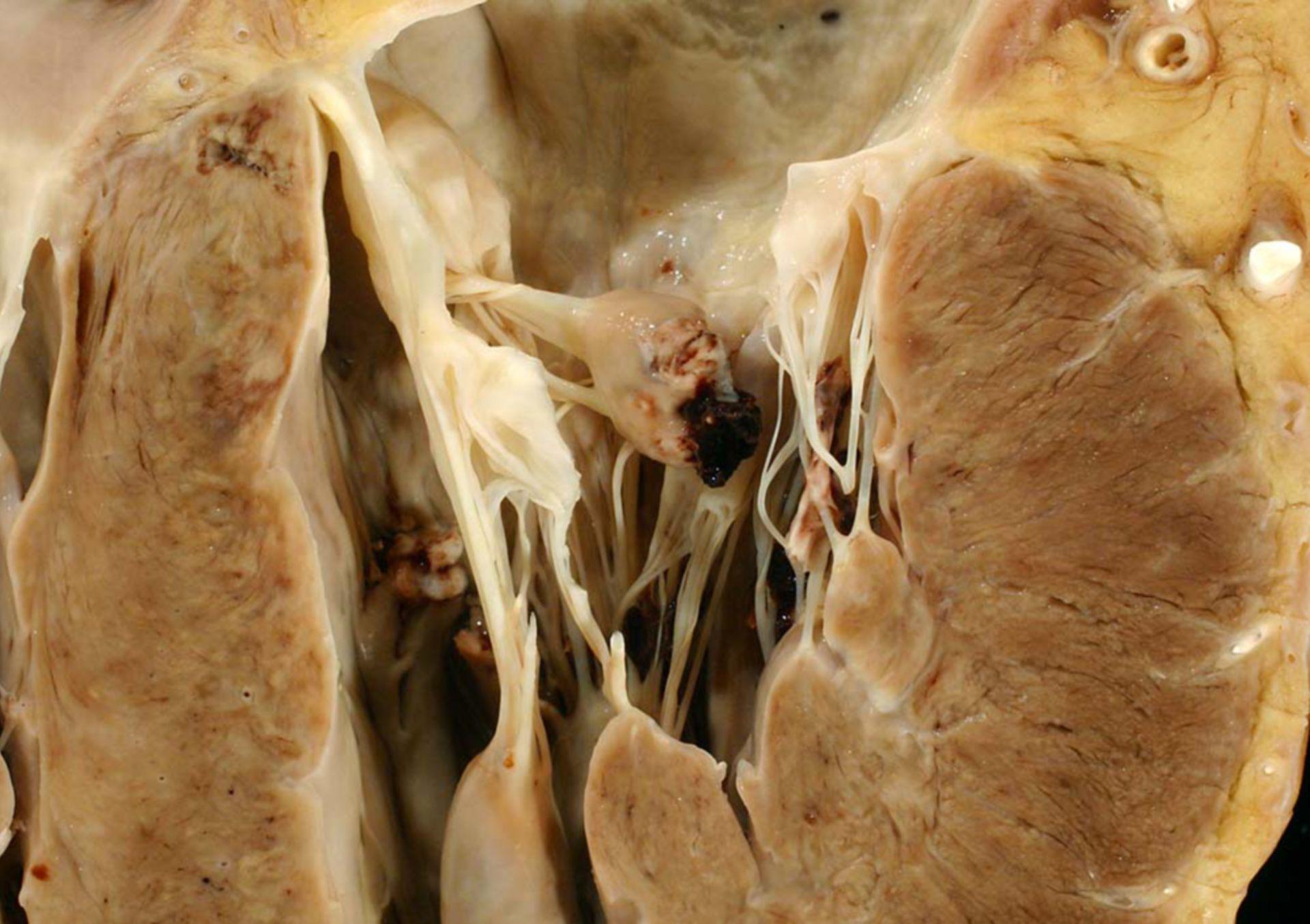 Papillarmuskelabriss (1)